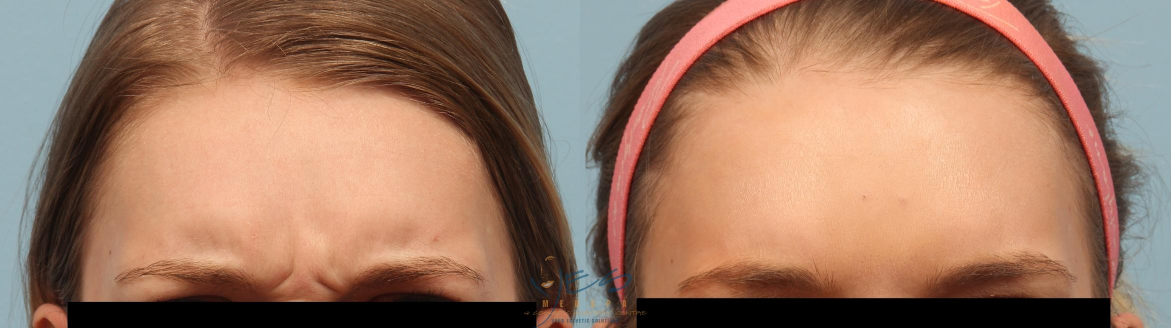 BOTOX COSMETIC® Treatments Case 250 Before & After Frown | Langley, BC | YES Medspa & Cosmetic Surgery Centre