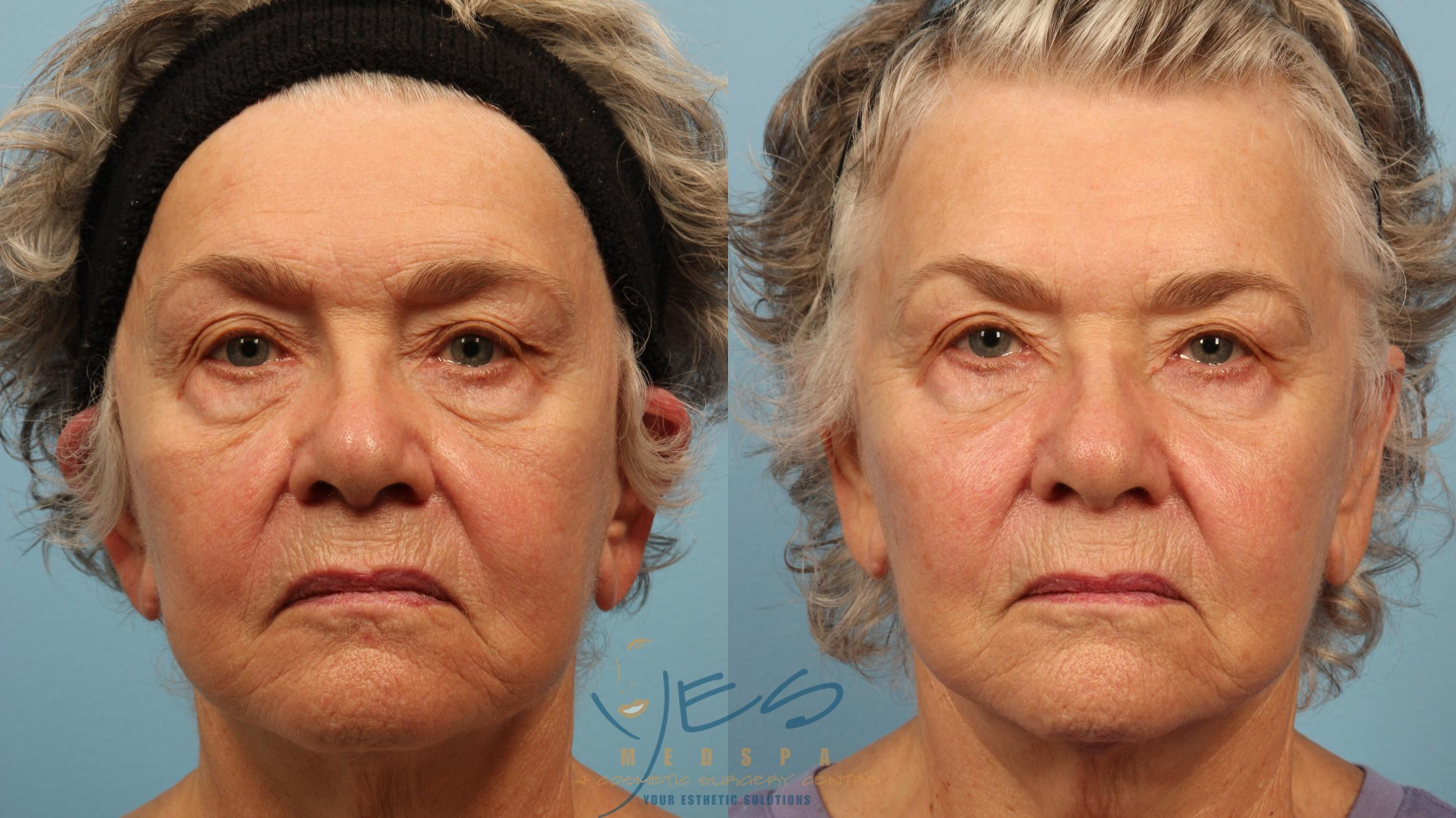 BOTOX COSMETIC® Treatments Case 357 Before & After Front | Vancouver, BC | YES Medspa & Cosmetic Surgery Centre