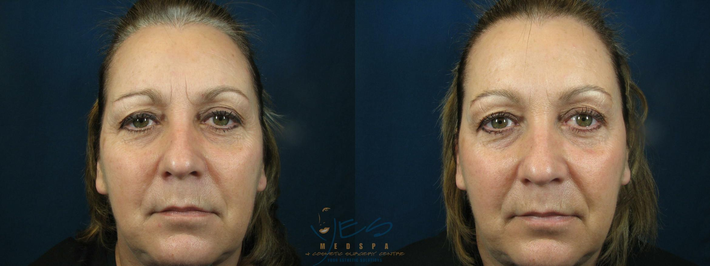 BOTOX COSMETIC® Treatments Case 80 Before & After At Rest | Langley, BC | YES Medspa & Cosmetic Surgery Centre