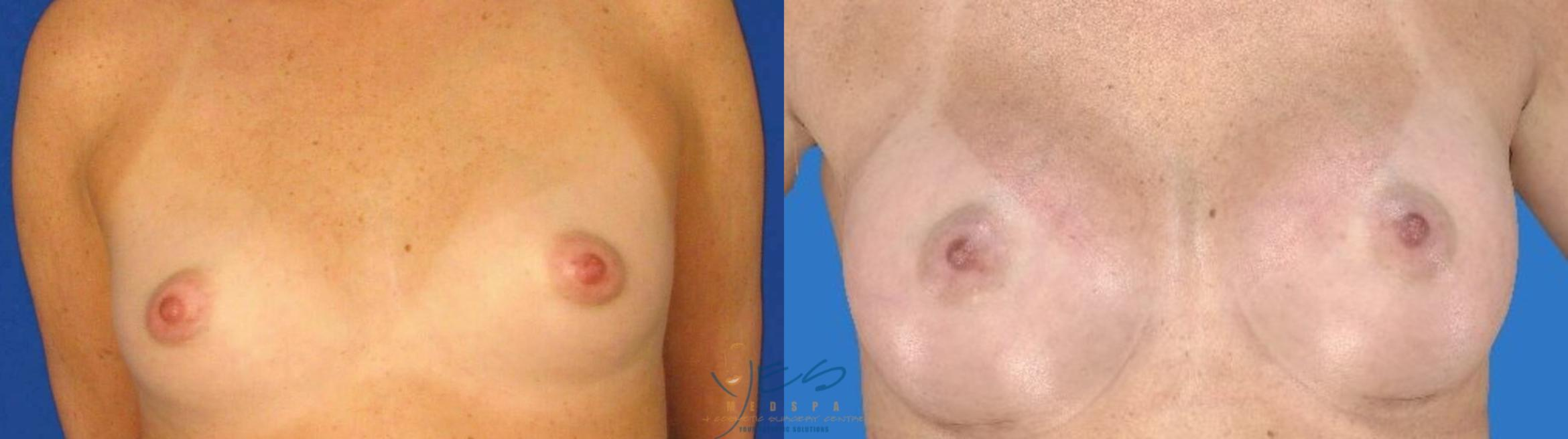 Breast Augmentation Case 100 Before & After Front | Vancouver, BC | YES Medspa & Cosmetic Surgery Centre