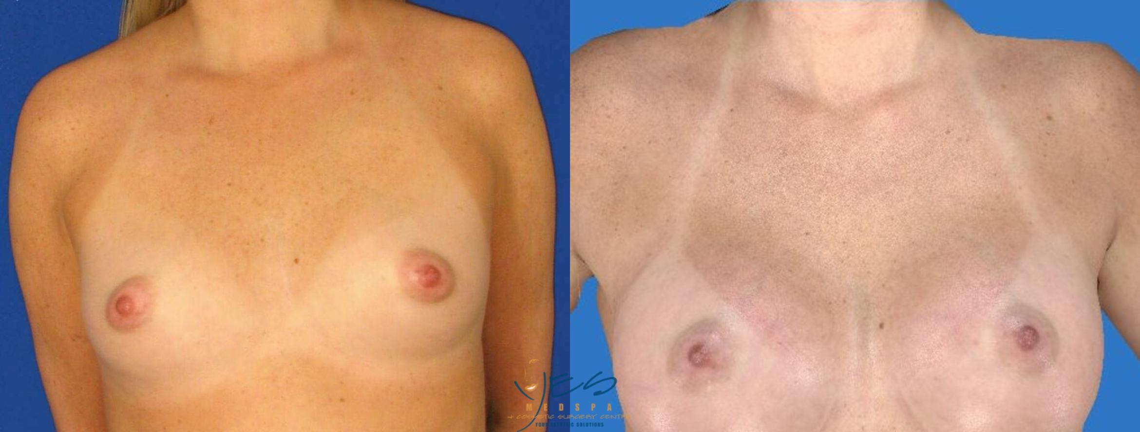 Breast Augmentation Case 100 Before & After View #1 | Langley, BC | YES Medspa & Cosmetic Surgery Centre