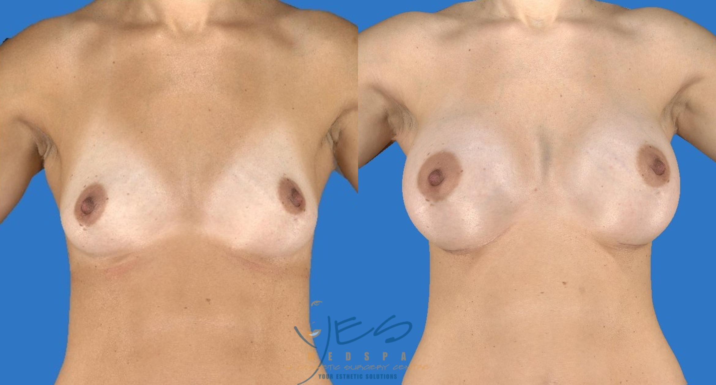 Breast Augmentation Case 110 Before & After View #1 | Vancouver, BC | YES Medspa & Cosmetic Surgery Centre