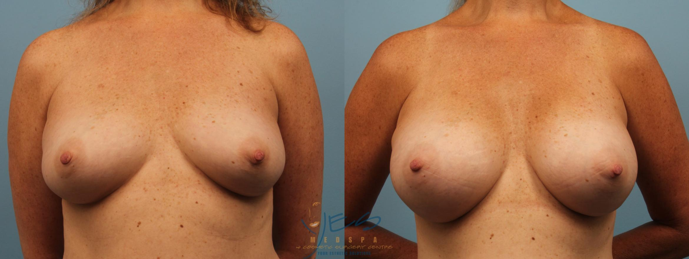 Breast Augmentation Case 191 Before & After View #1 | Langley, BC | YES Medspa & Cosmetic Surgery Centre