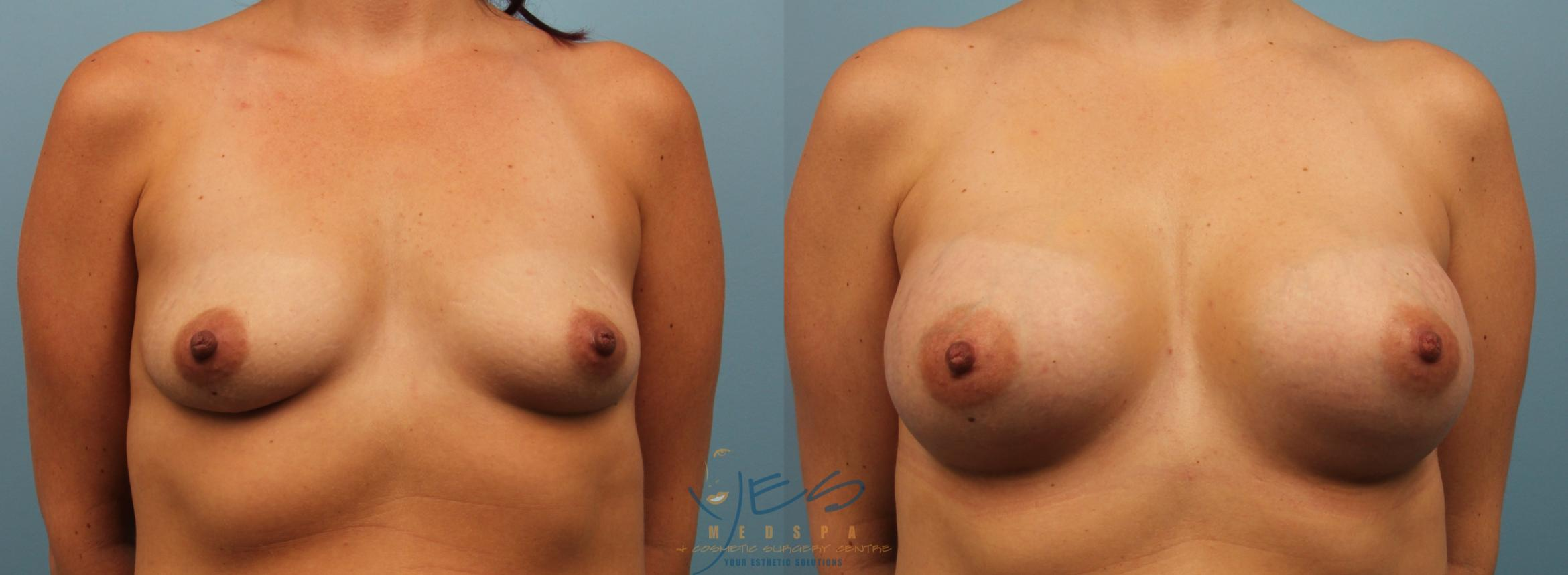 Breast Augmentation Case 196 Before & After View #1 | Langley, BC | YES Medspa & Cosmetic Surgery Centre