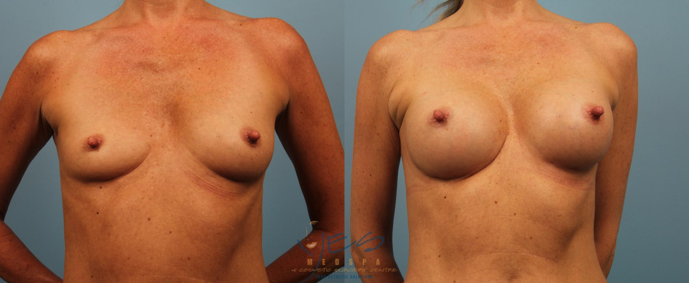 Breast Augmentation Case 229 Before & After View #1 | Langley, BC | YES Medspa & Cosmetic Surgery Centre