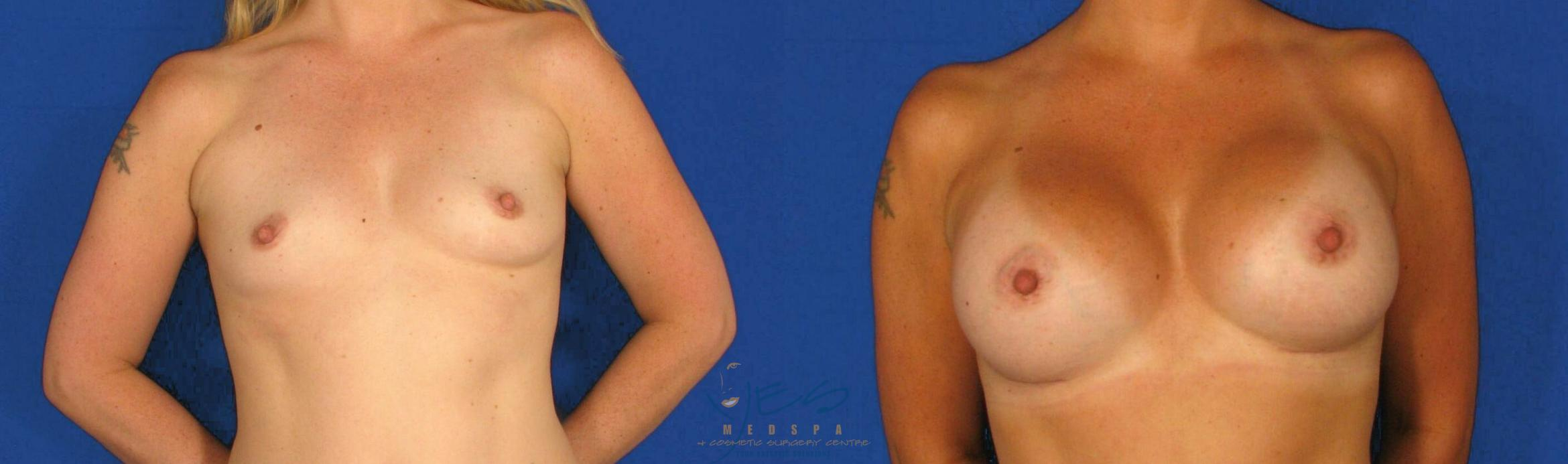 Breast Augmentation Case 77 Before & After View #1 | Langley, BC | YES Medspa & Cosmetic Surgery Centre