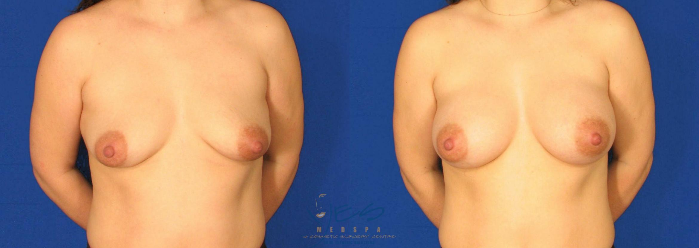 Breast Augmentation Case 82 Before & After View #1 | Langley, BC | YES Medspa & Cosmetic Surgery Centre