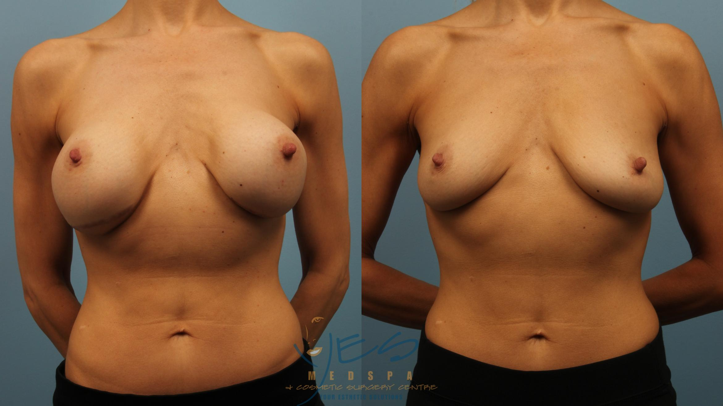 Breast Implant Removal Case 320 Before & After Front | Langley, BC | YES Medspa & Cosmetic Surgery Centre