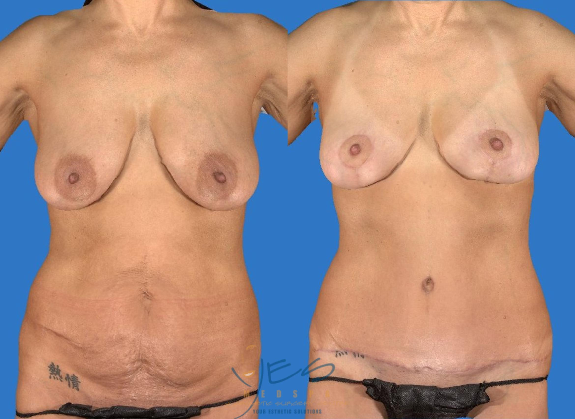 Breast Lift Case 107 Before & After View #1 | Vancouver, BC | YES Medspa & Cosmetic Surgery Centre