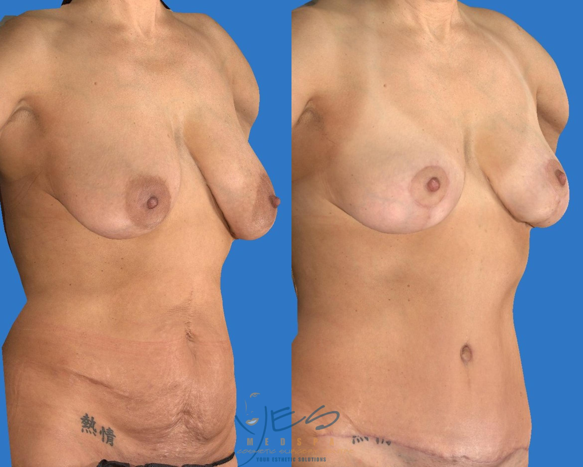 Breast Lift Case 107 Before & After View #2 | Vancouver, BC | YES Medspa & Cosmetic Surgery Centre