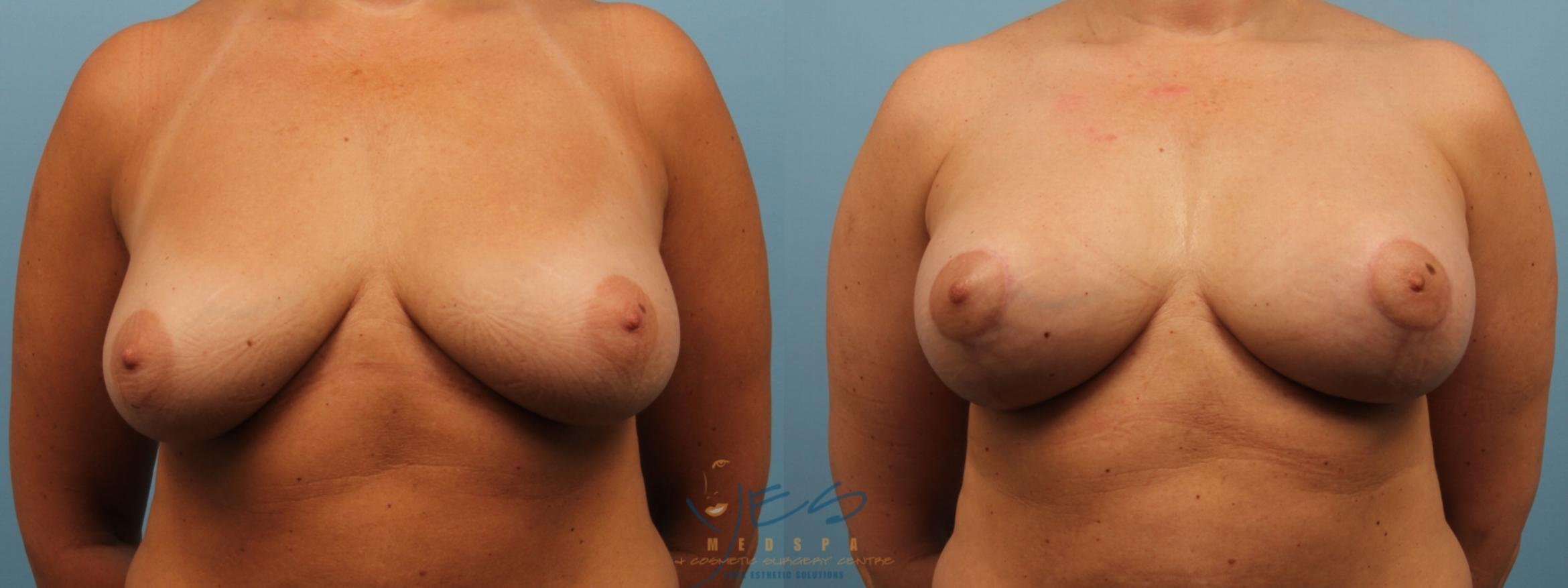 Breast Lift Case 171 Before & After View #1 | Langley, BC | YES Medspa & Cosmetic Surgery Centre