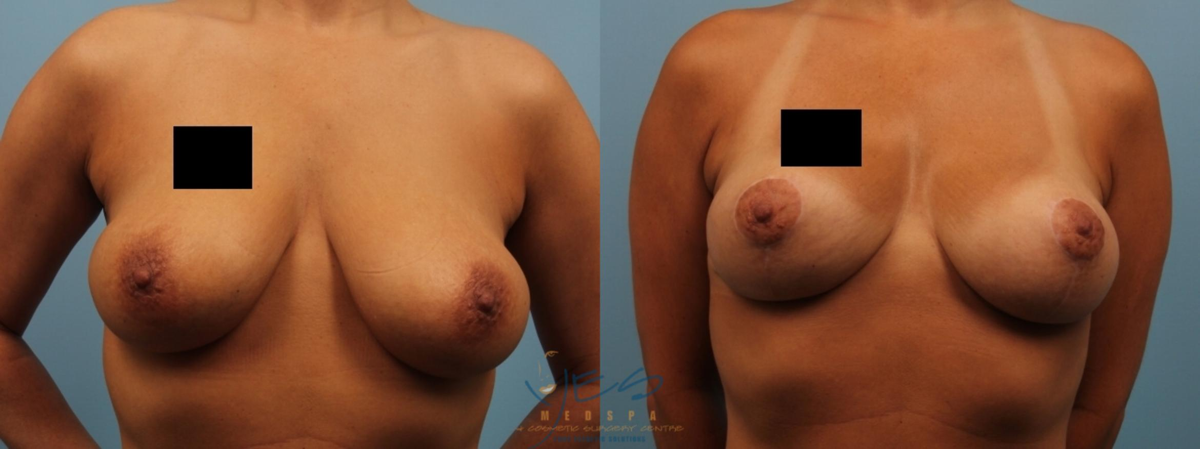 Breast Lift Case 181 Before & After View #1 | Langley, BC | YES Medspa & Cosmetic Surgery Centre