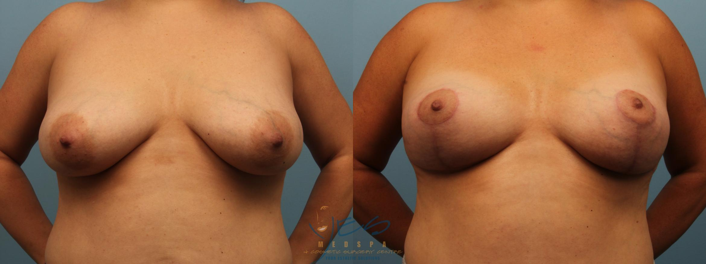 Breast Lift Case 300 Before & After Front | Vancouver, BC | YES Medspa & Cosmetic Surgery Centre