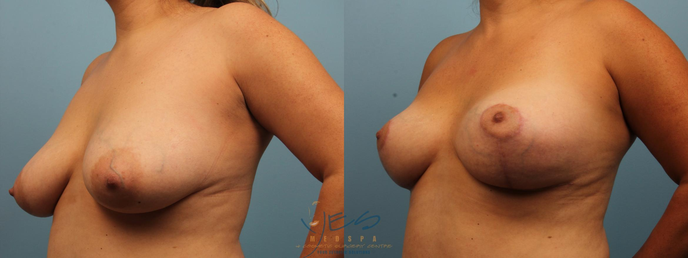 Breast Lift Case 300 Before & After Left Oblique | Vancouver, BC | YES Medspa & Cosmetic Surgery Centre