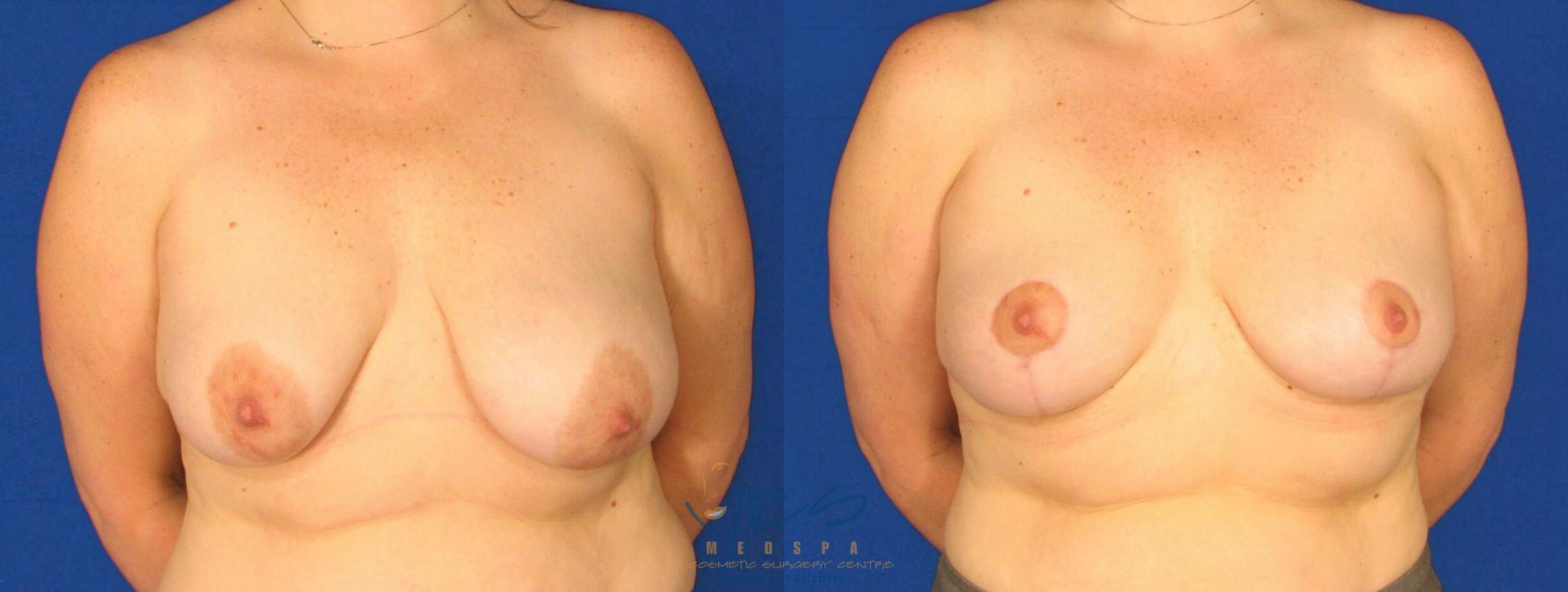 Breast Lift Case 64 Before & After View #1 | Langley, BC | YES Medspa & Cosmetic Surgery Centre