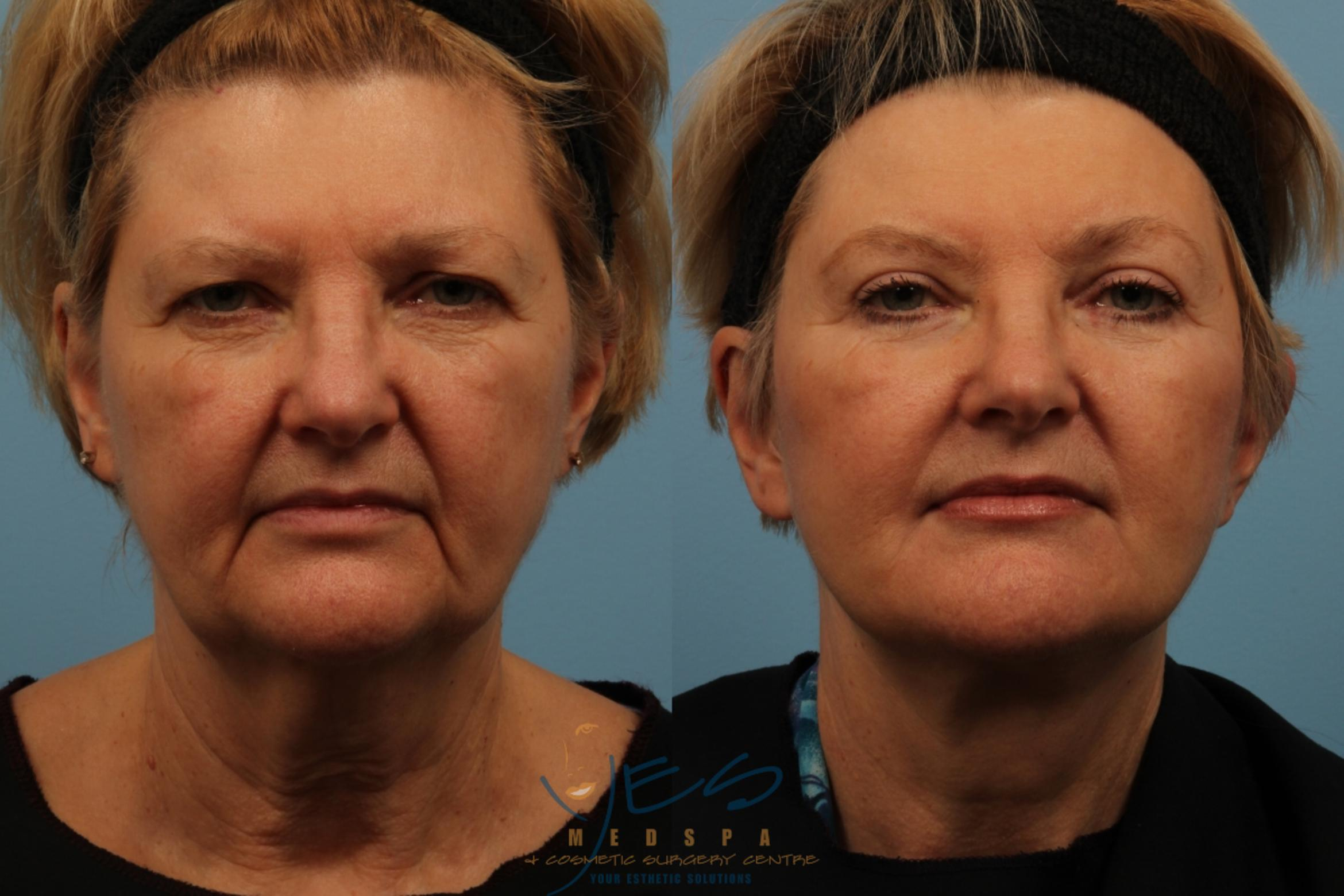Brow Lift Case 168 Before & After View #1 | Langley, BC | YES Medspa & Cosmetic Surgery Centre