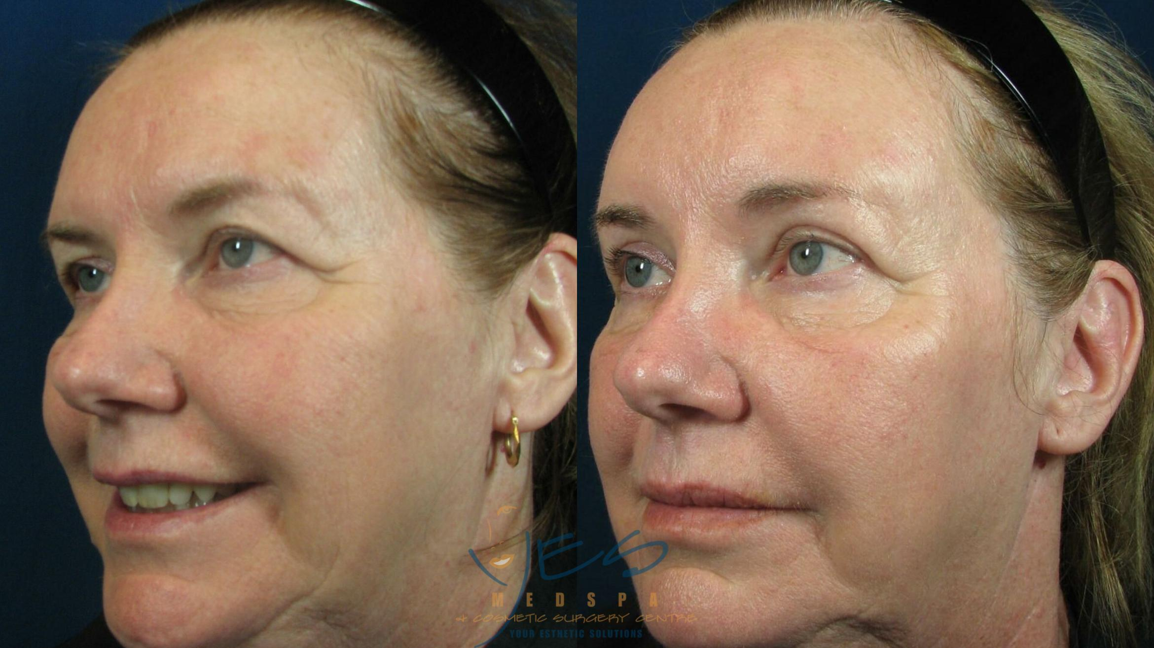 Brow Lift Case 50 Before & After View #1 | Langley, BC | YES Medspa & Cosmetic Surgery Centre