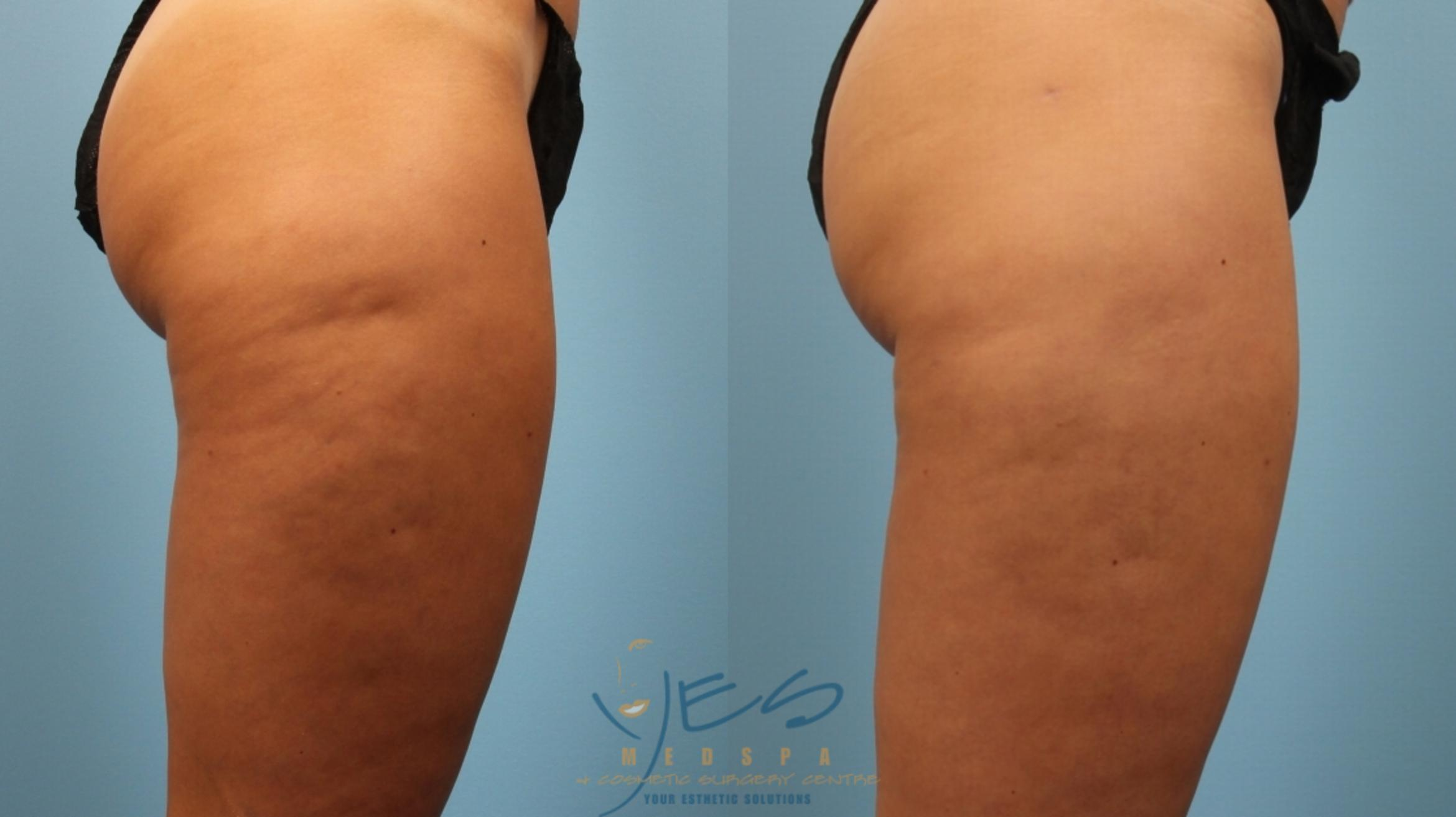 Cellulaze Case 164 Before & After Right Side | Vancouver, BC | YES Medspa & Cosmetic Surgery Centre