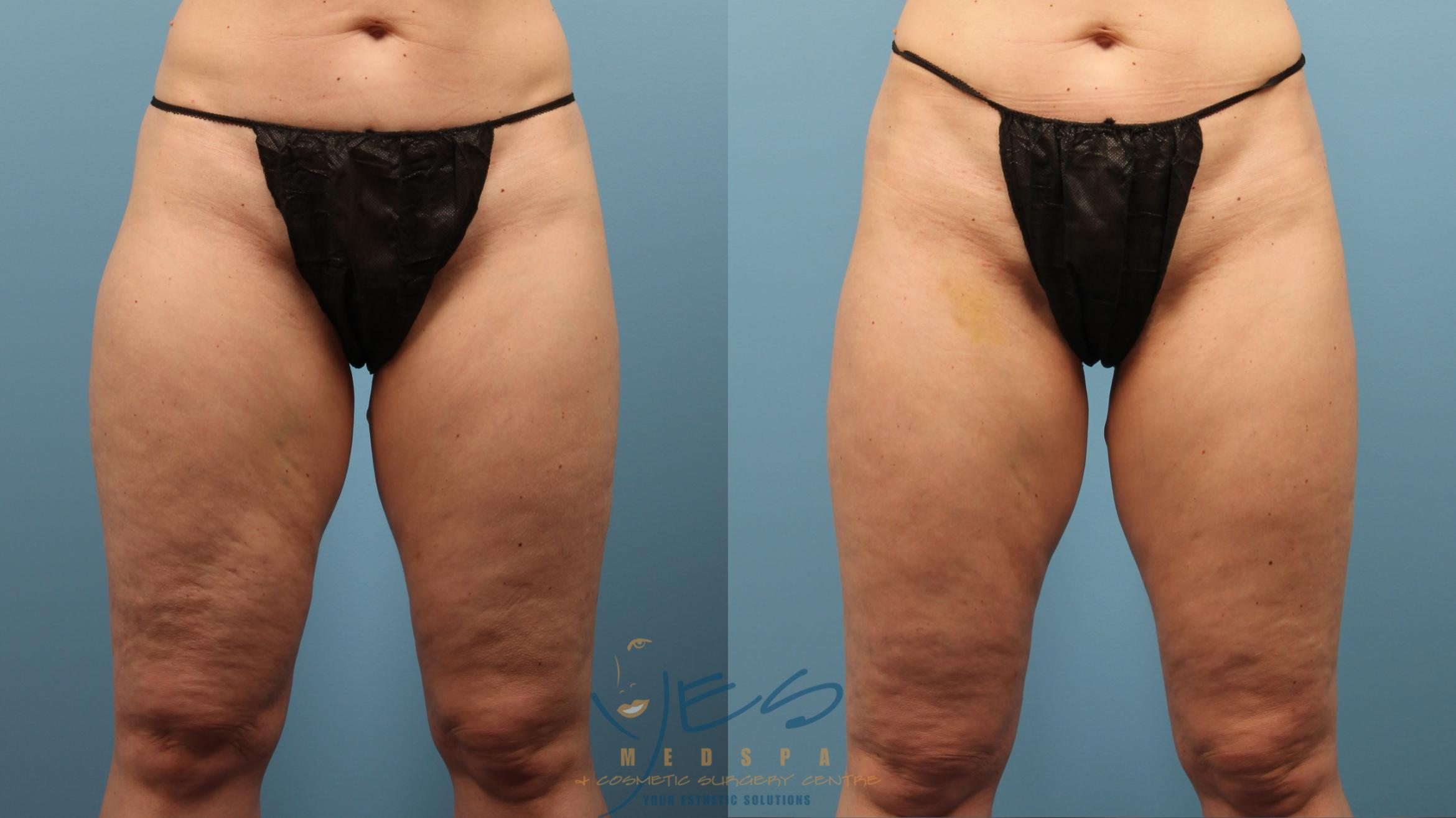 Cellulaze Before After Photos Patient 239 Langley Bc Yes Medspa Cosmetic Surgery Centre