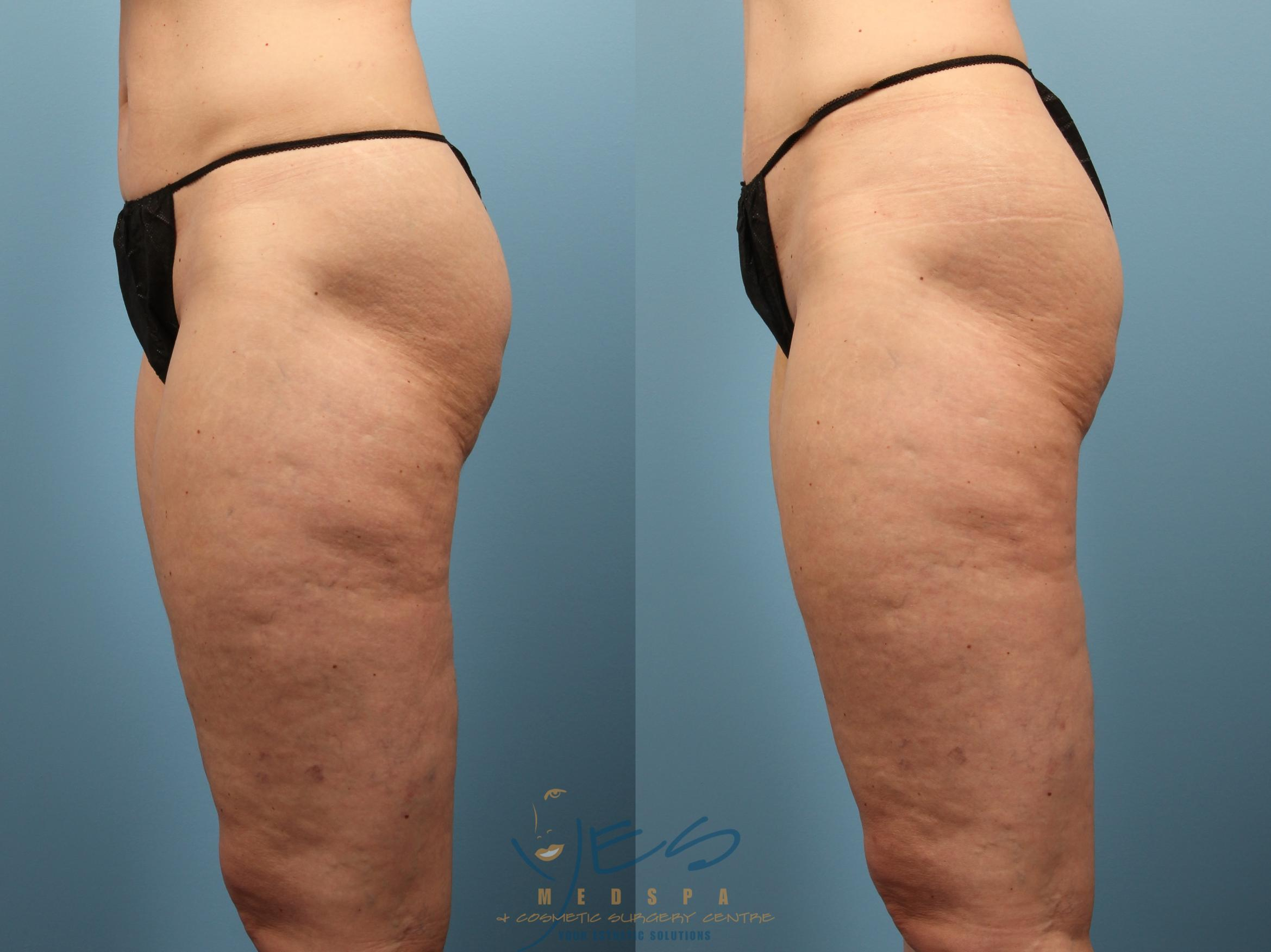 Cellulaze Case 239 Before & After Left Side | Vancouver, BC | YES Medspa & Cosmetic Surgery Centre