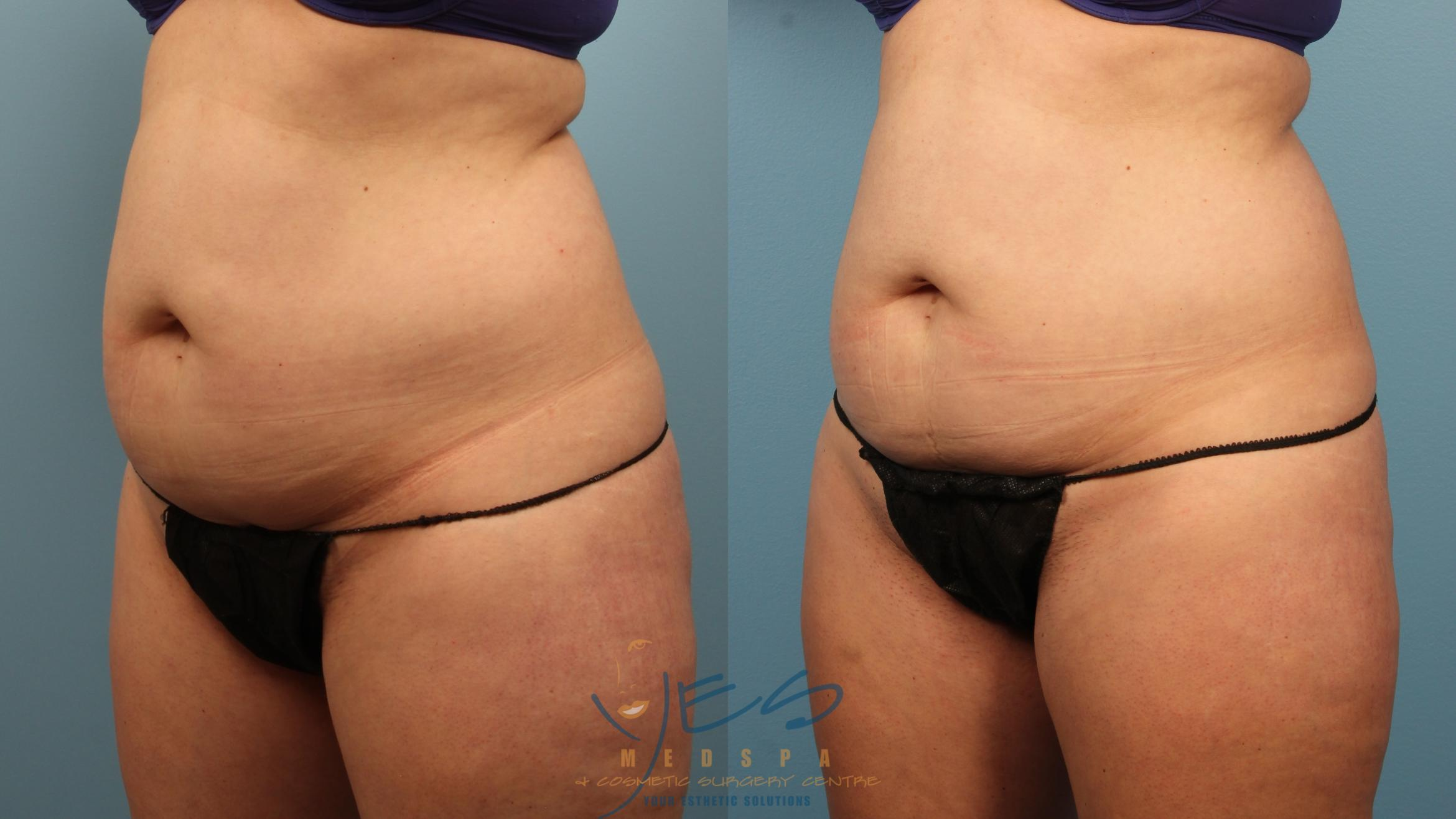 EVOLVE - TRIM Case 331 Before & After Left Oblique | Vancouver, BC | YES Medspa & Cosmetic Surgery Centre