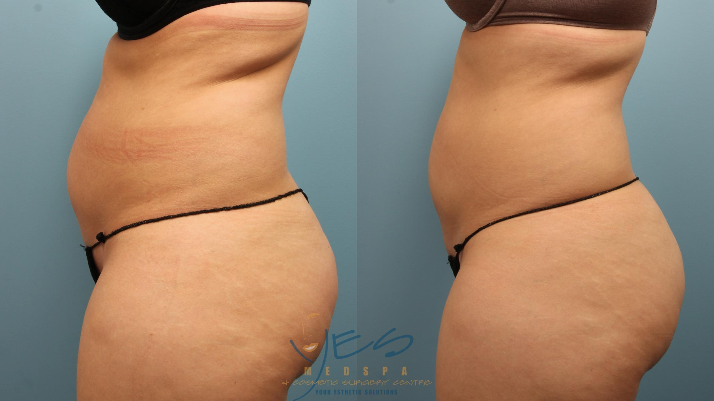 EVOLVE - TRIM Case 332 Before & After Left Side | Vancouver, BC | YES Medspa & Cosmetic Surgery Centre