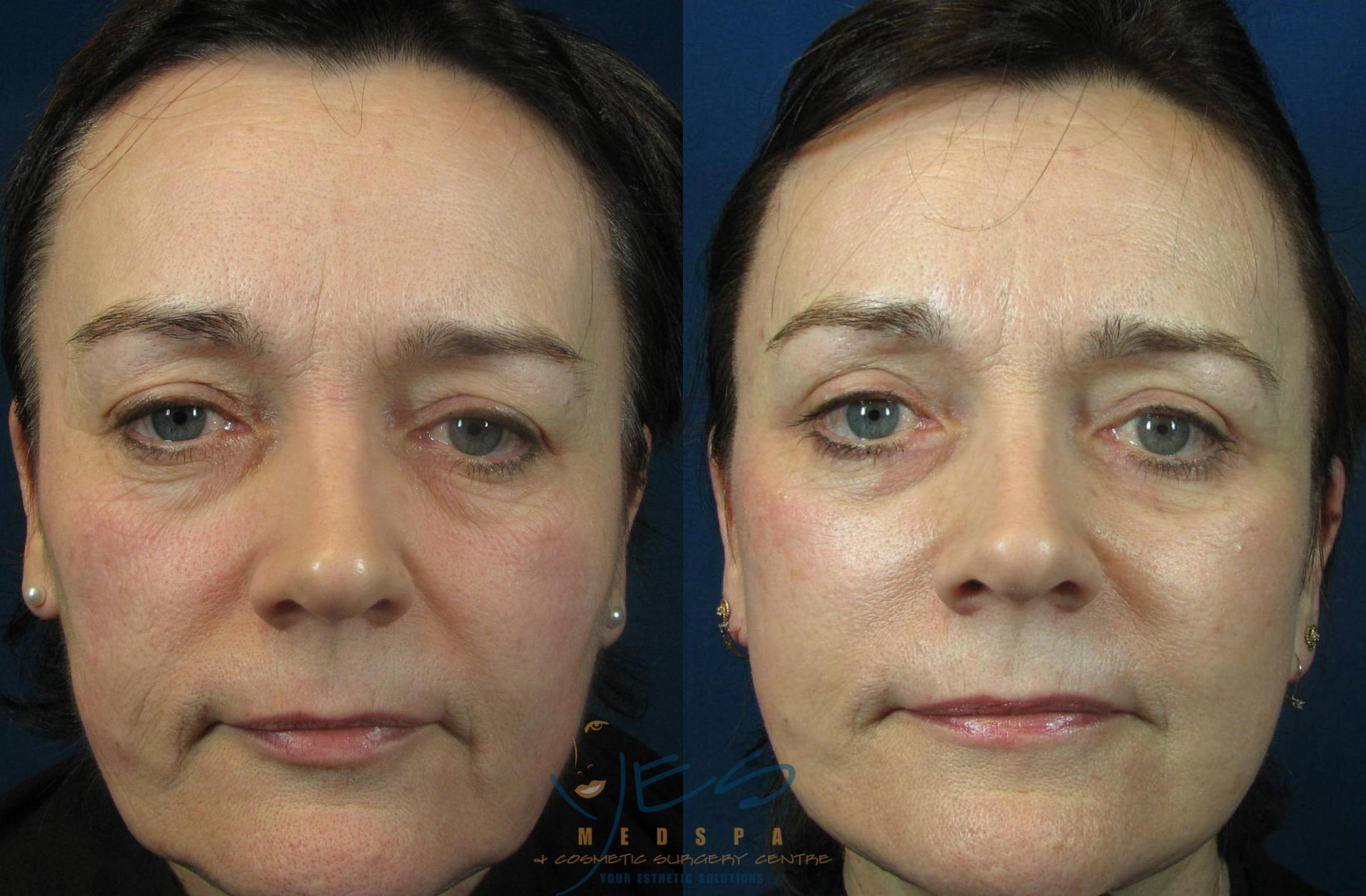 Face Lift & Neck Lift Case 115 Before & After View #1 | Langley, BC | YES Medspa & Cosmetic Surgery Centre