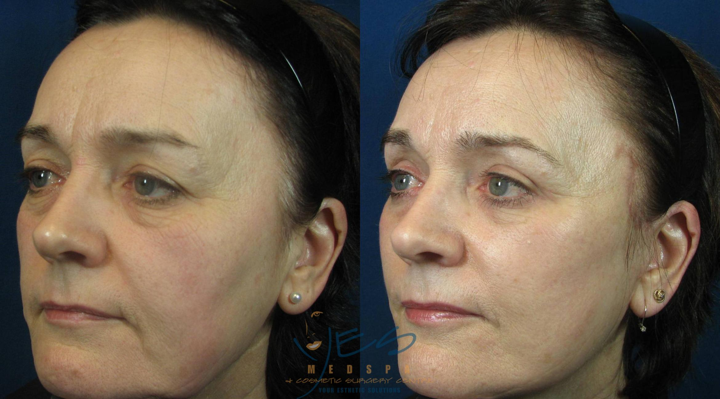 Face Lift & Neck Lift Case 115 Before & After View #2 | Langley, BC | YES Medspa & Cosmetic Surgery Centre