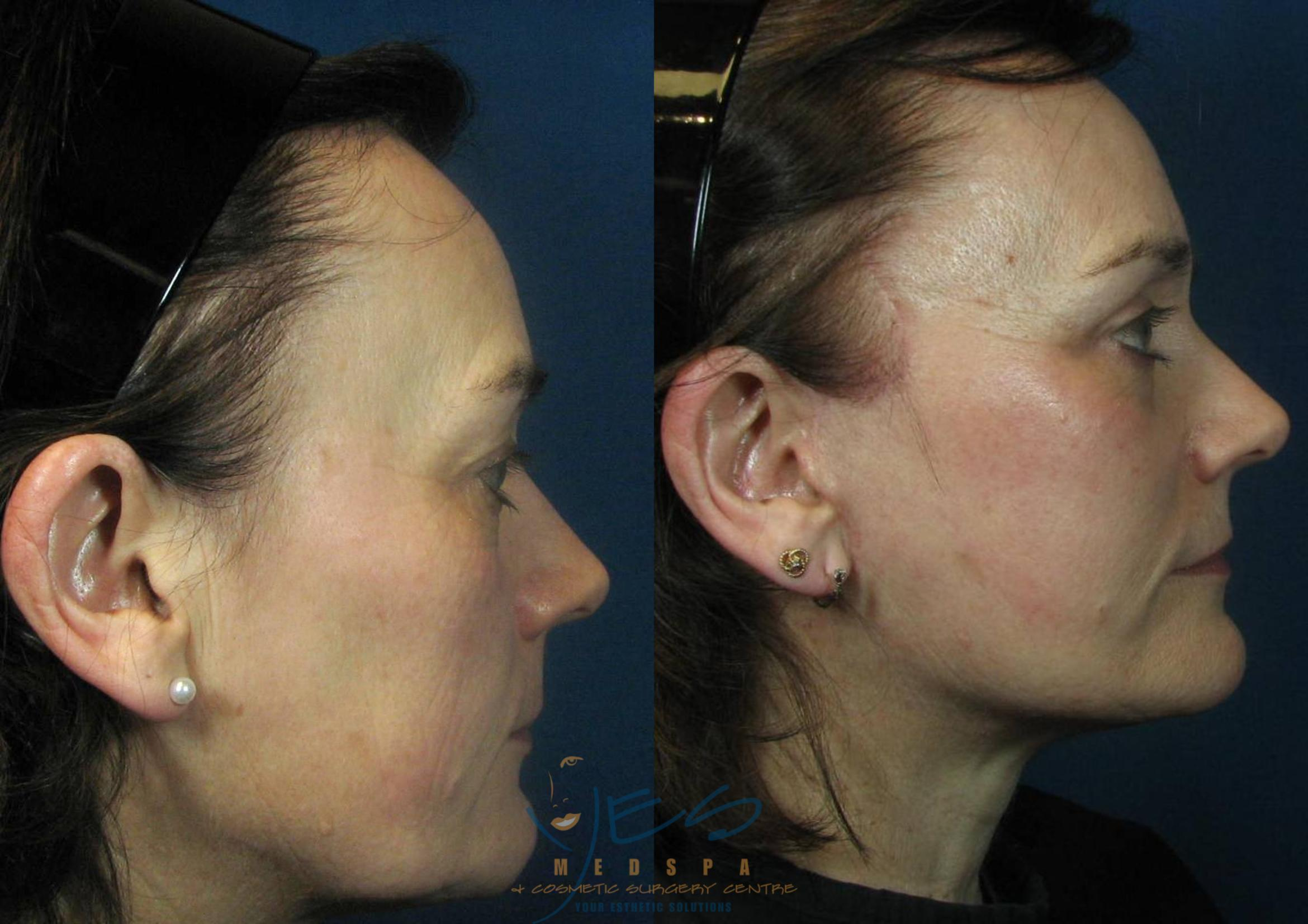 Face Lift & Neck Lift Case 115 Before & After View #3 | Langley, BC | YES Medspa & Cosmetic Surgery Centre