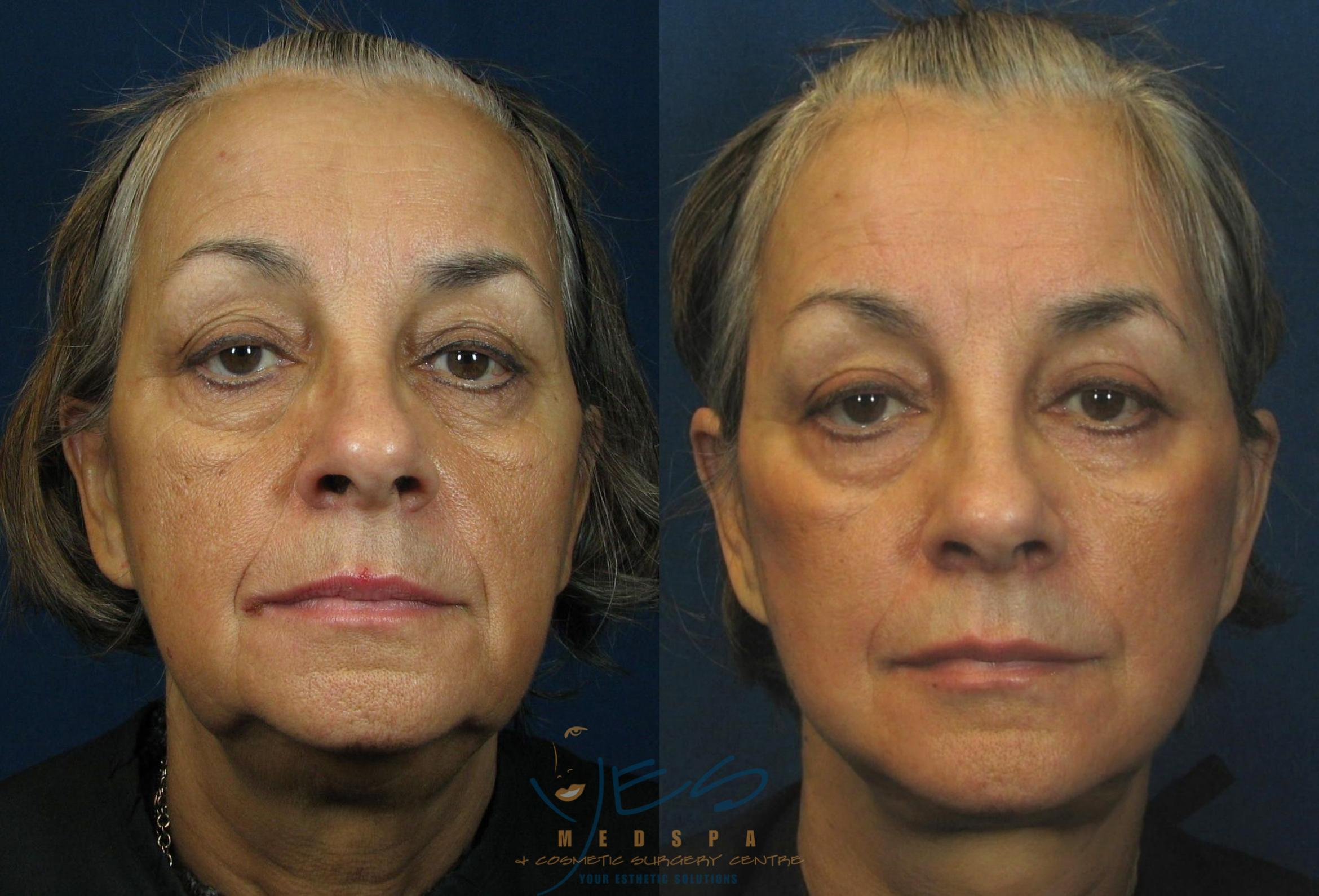 Face Lift & Neck Lift Case 46 Before & After View #1 | Langley, BC | YES Medspa & Cosmetic Surgery Centre