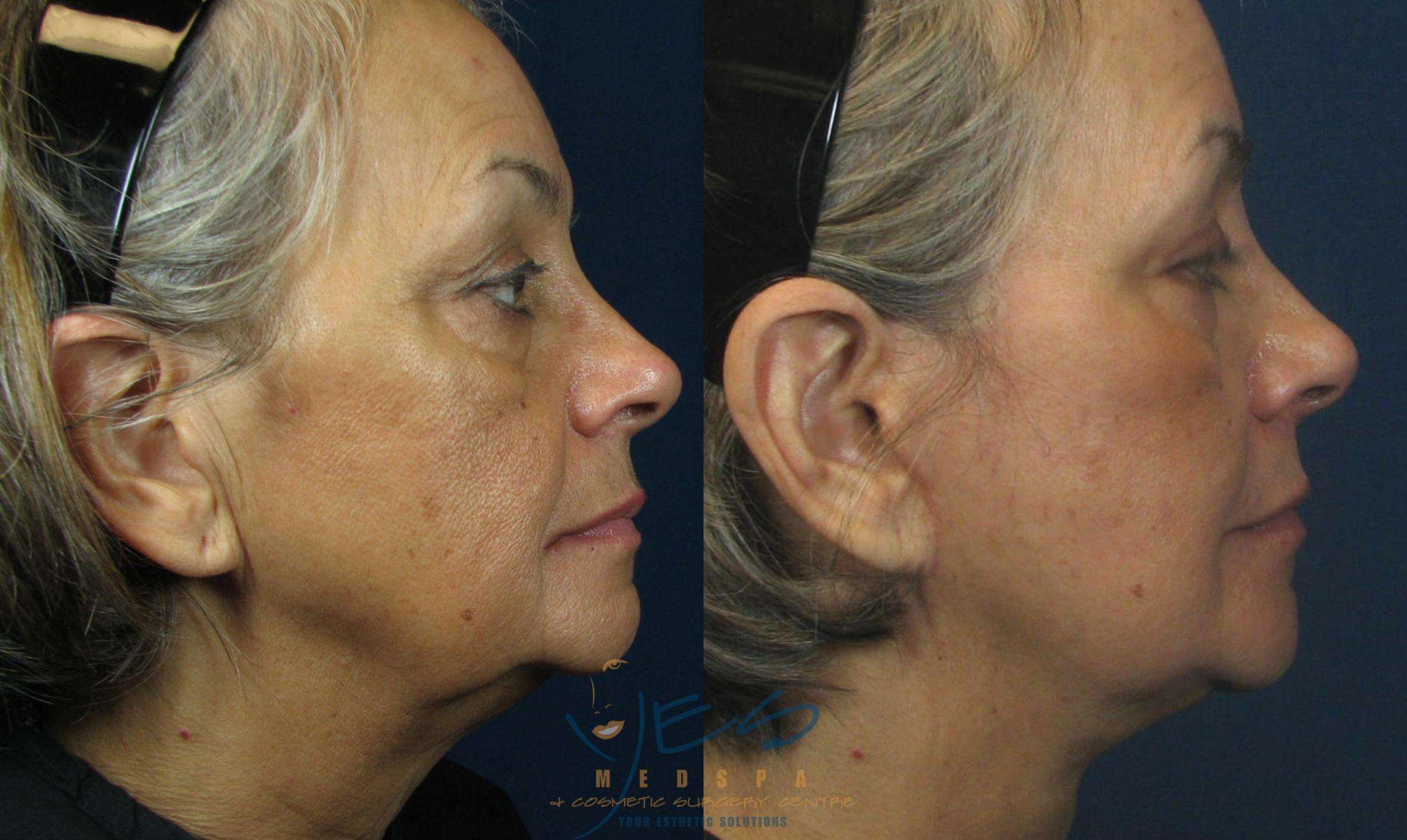 Face Lift & Neck Lift Case 46 Before & After View #2 | Langley, BC | YES Medspa & Cosmetic Surgery Centre