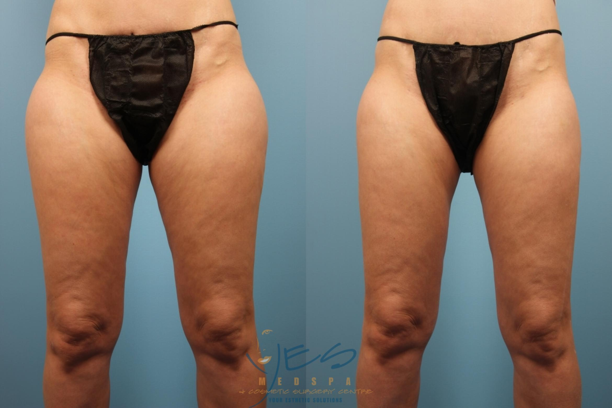 Liposuction Case 162 Before & After Front | Vancouver, BC | YES Medspa & Cosmetic Surgery Centre