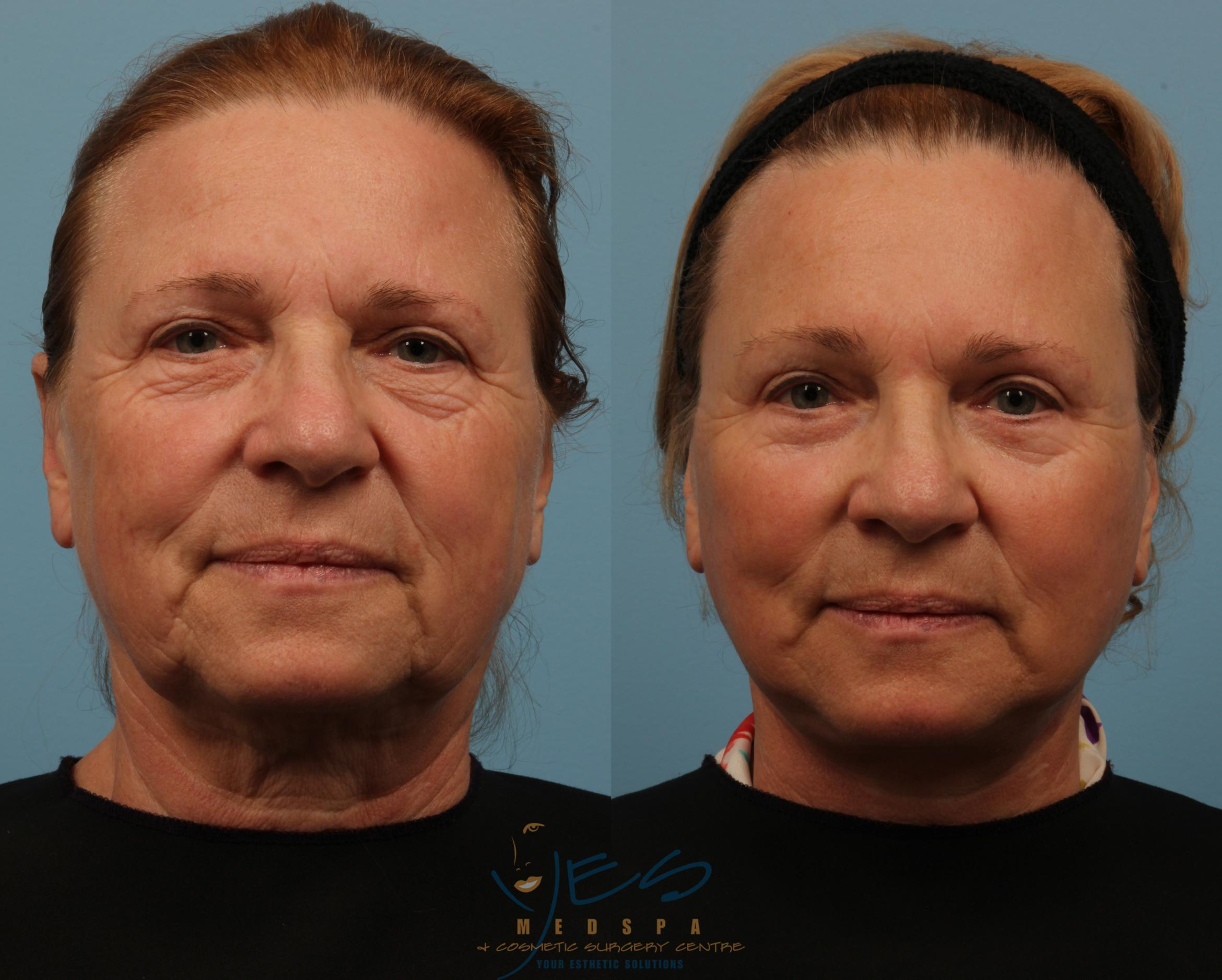 Lower Eyelid Blepharoplasty Case 150 Before & After View #1 | Langley, BC | YES Medspa & Cosmetic Surgery Centre