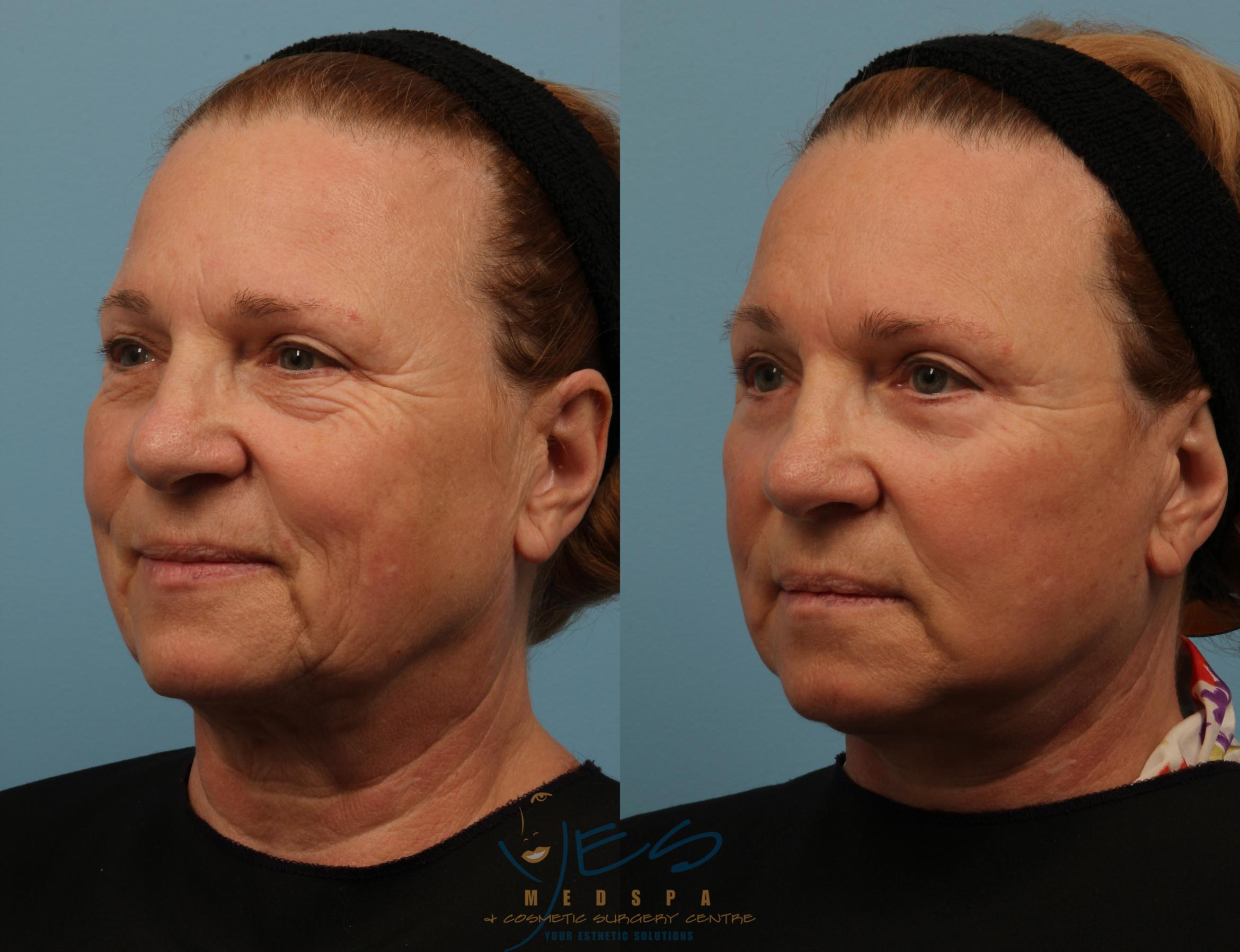 Lower Eyelid Blepharoplasty Case 150 Before & After View #2 | Vancouver, BC | YES Medspa & Cosmetic Surgery Centre