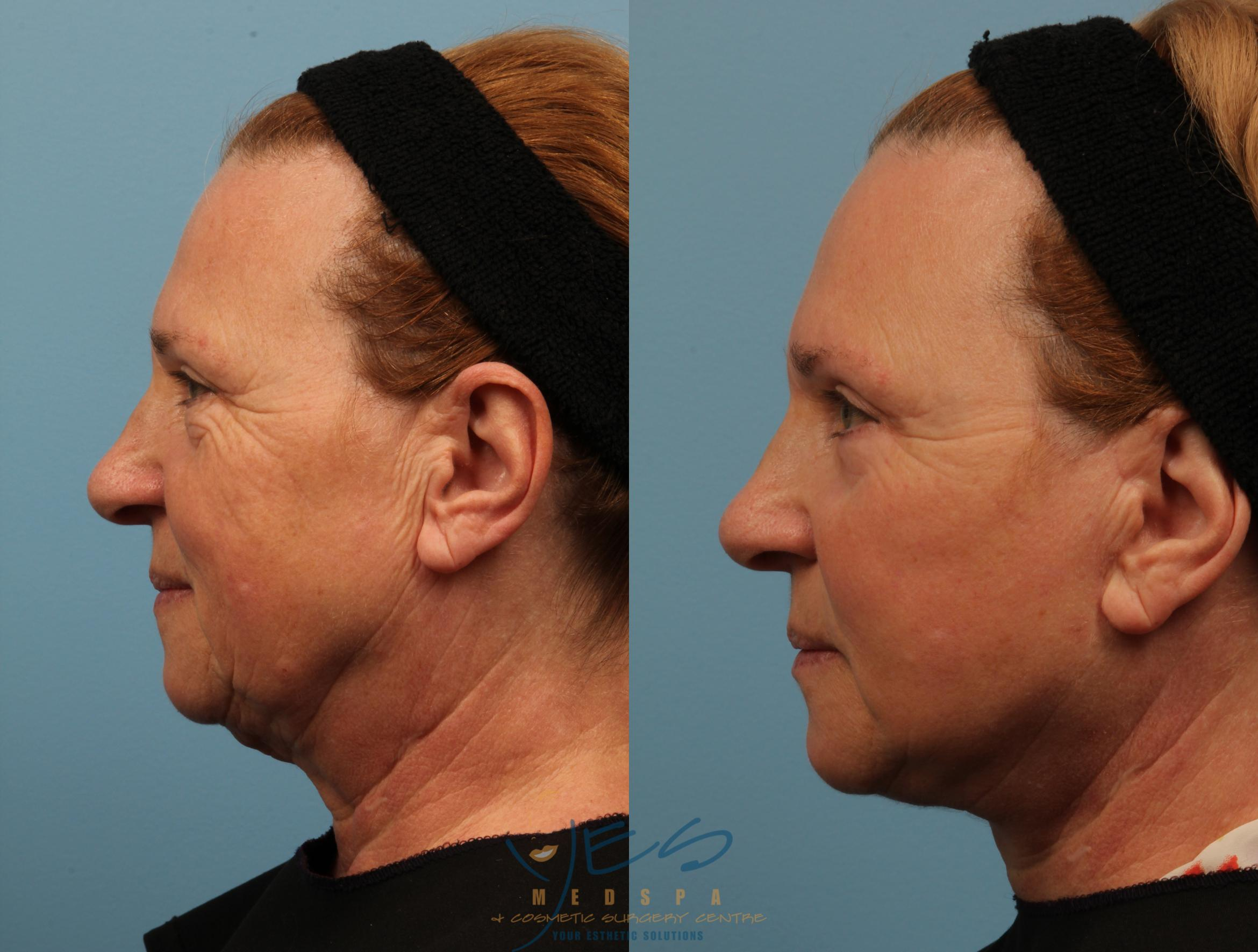 Lower Eyelid Blepharoplasty Case 150 Before & After View #3 | Vancouver, BC | YES Medspa & Cosmetic Surgery Centre