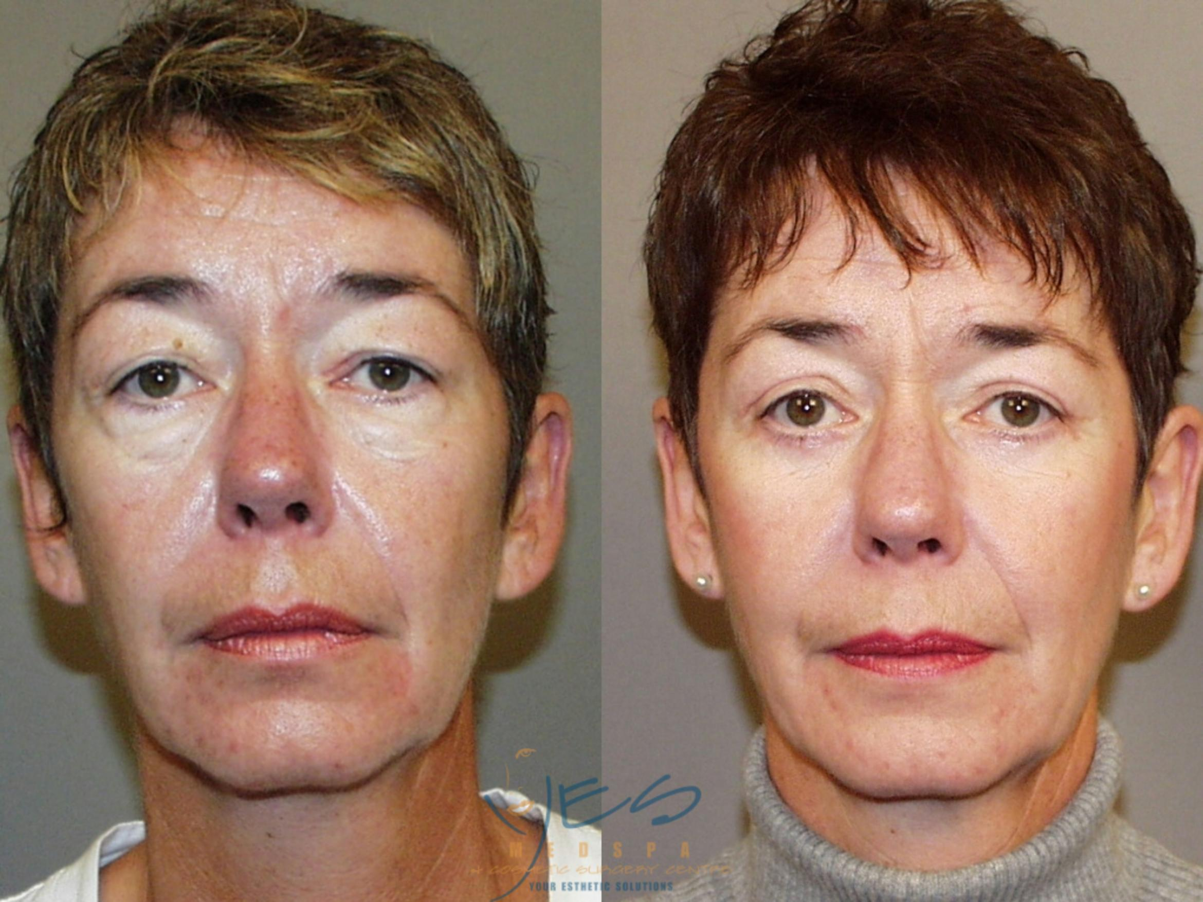 Lower Eyelid Blepharoplasty Case 45 Before & After View #1 | Vancouver, BC | YES Medspa & Cosmetic Surgery Centre
