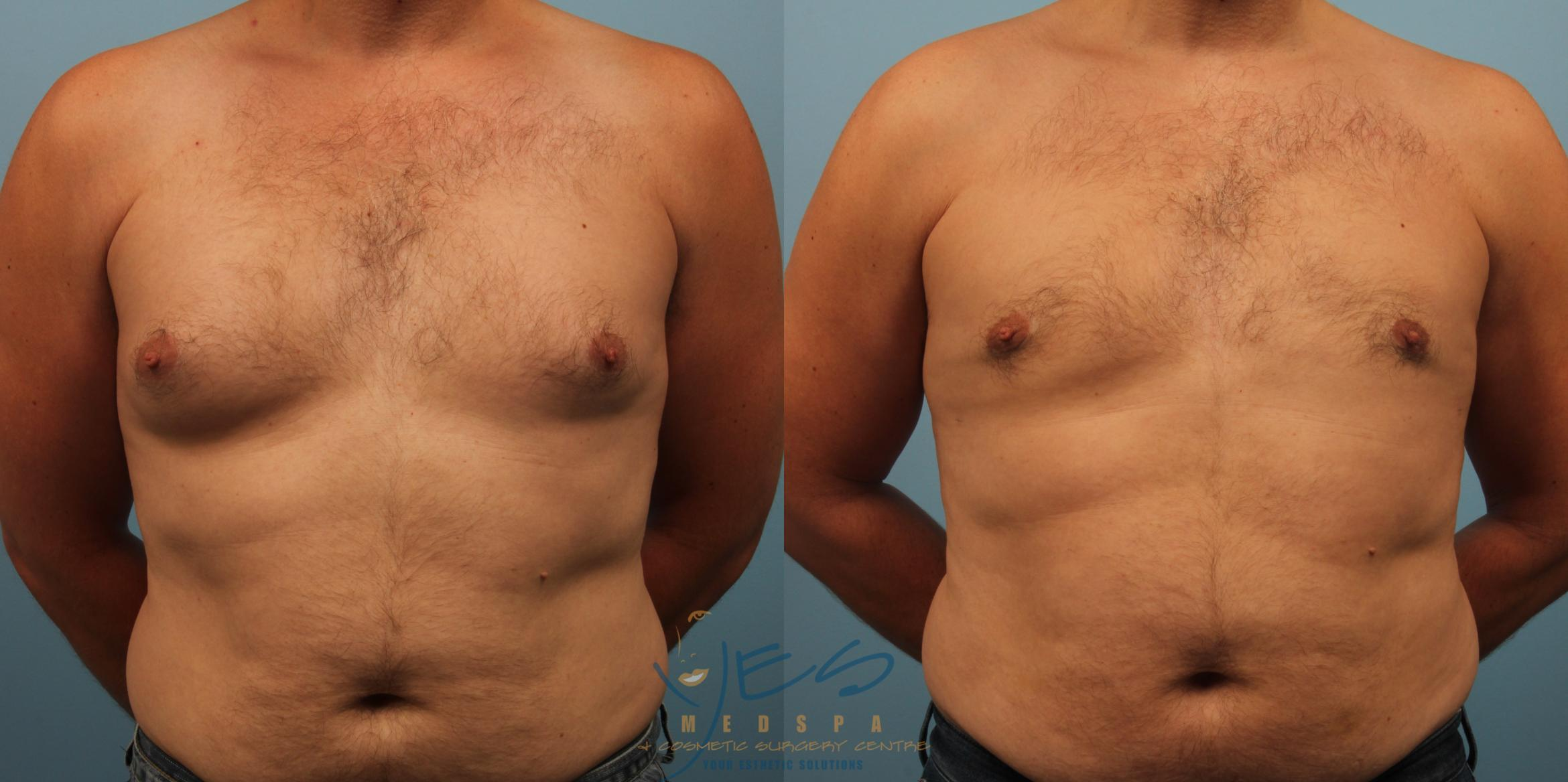 Male Breast Reduction Case 234 Before & After View #1 | Vancouver, BC | YES Medspa & Cosmetic Surgery Centre