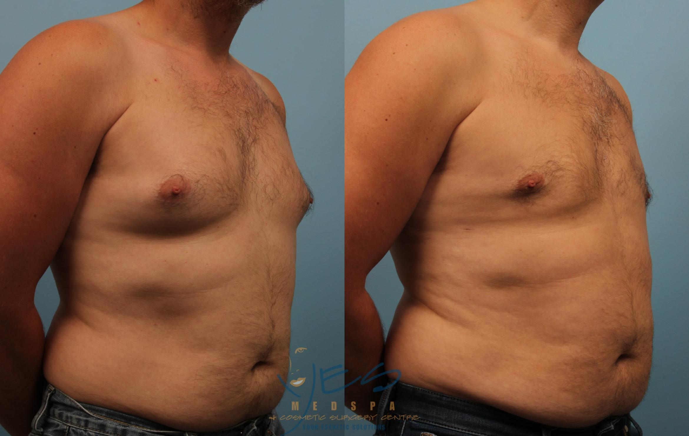 Male Breast Reduction Case 234 Before & After View #2 | Vancouver, BC | YES Medspa & Cosmetic Surgery Centre