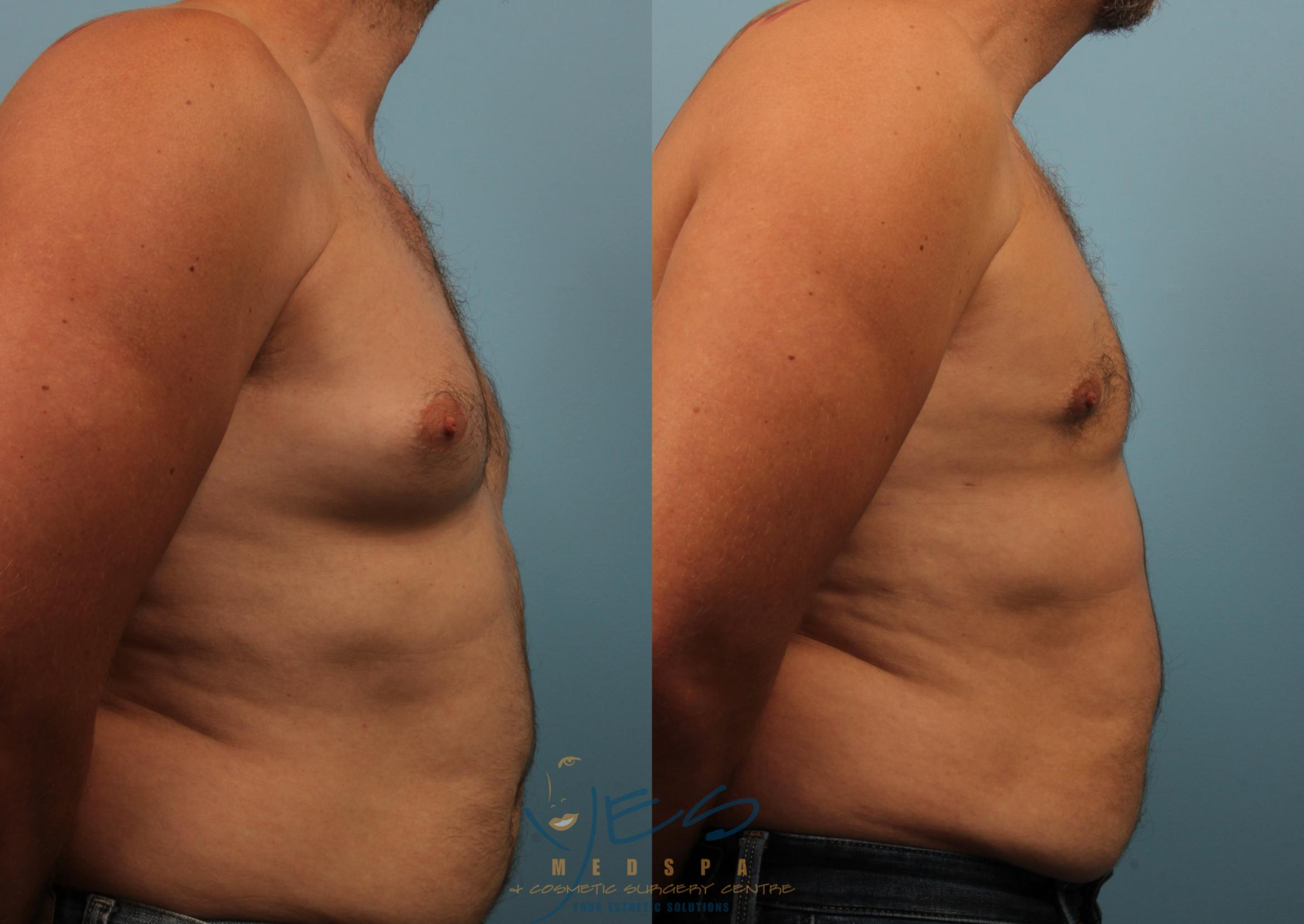Male Breast Reduction Case 234 Before & After View #3 | Vancouver, BC | YES Medspa & Cosmetic Surgery Centre
