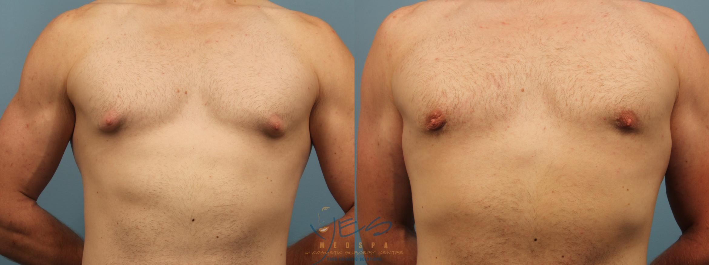 Male Breast Reduction Case 303 Before & After Front | Vancouver, BC | YES Medspa & Cosmetic Surgery Centre
