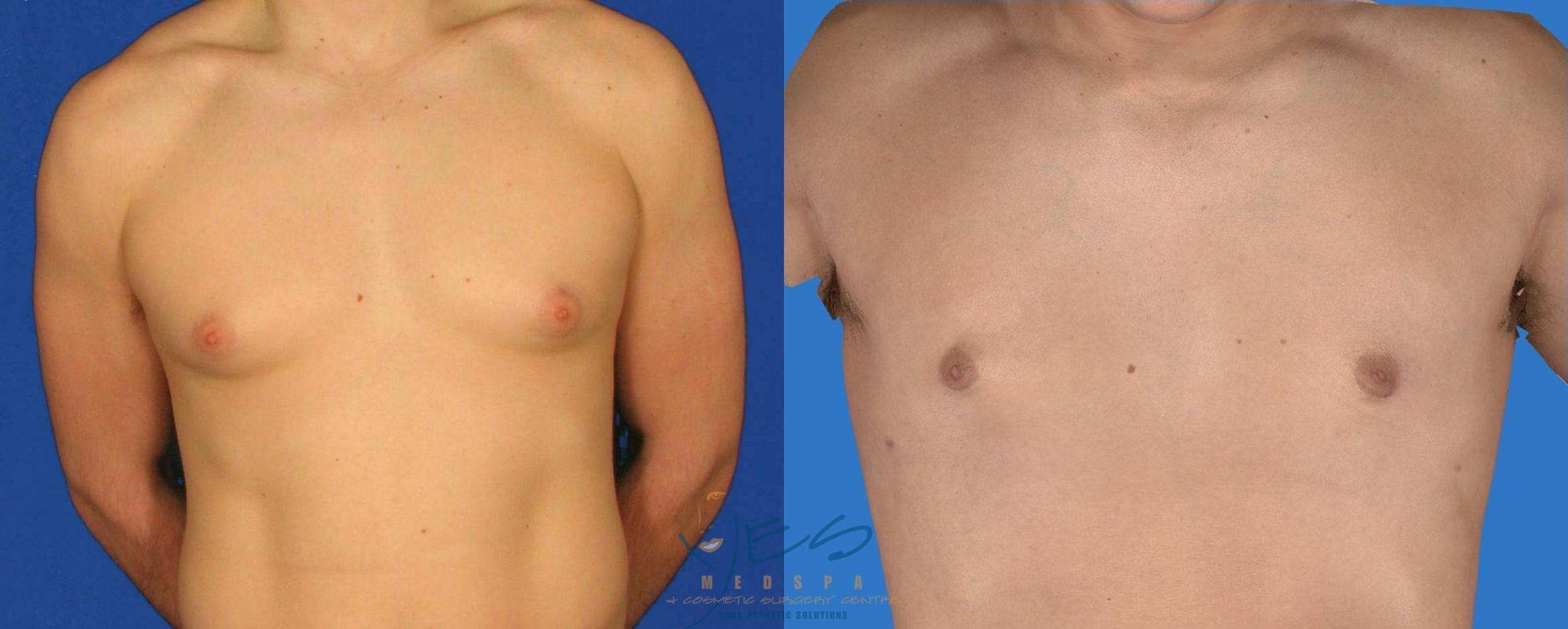 Male Breast Reduction Case 85 Before & After View #1 | Vancouver, BC | YES Medspa & Cosmetic Surgery Centre