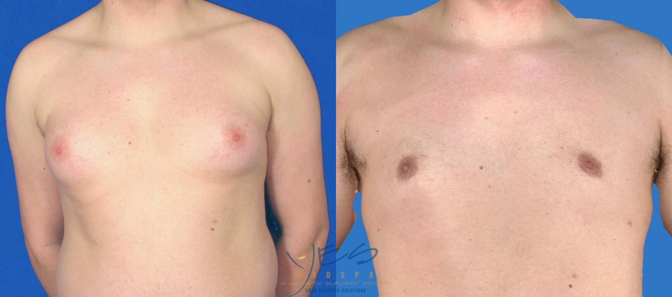 Male Breast Reduction Case 87 Before & After View #1 | Vancouver, BC | YES Medspa & Cosmetic Surgery Centre