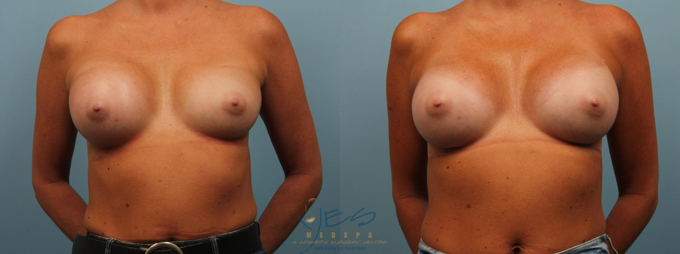 Revision Breast Surgery Case 286 Before & After Front | Vancouver, BC | YES Medspa & Cosmetic Surgery Centre