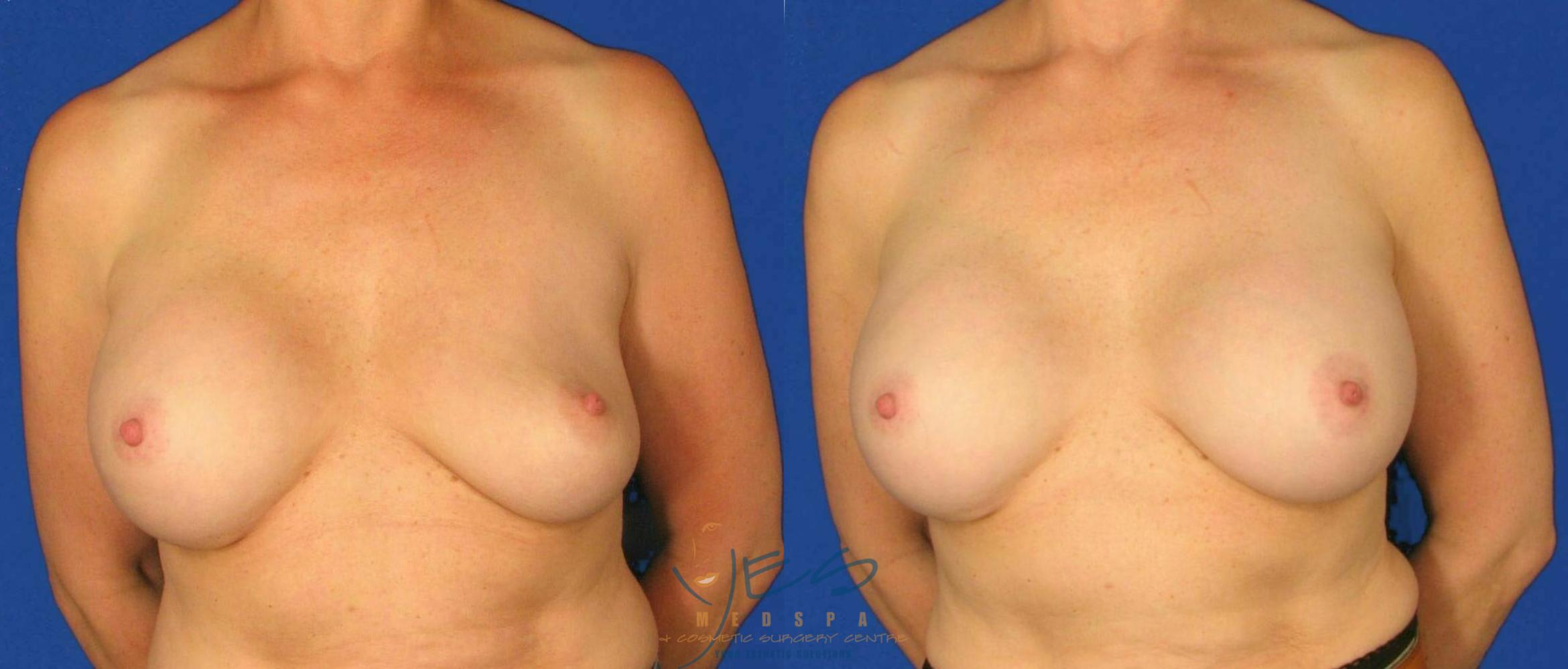 Revision Breast Surgery Case 99 Before & After View #1 | Langley, BC | YES Medspa & Cosmetic Surgery Centre
