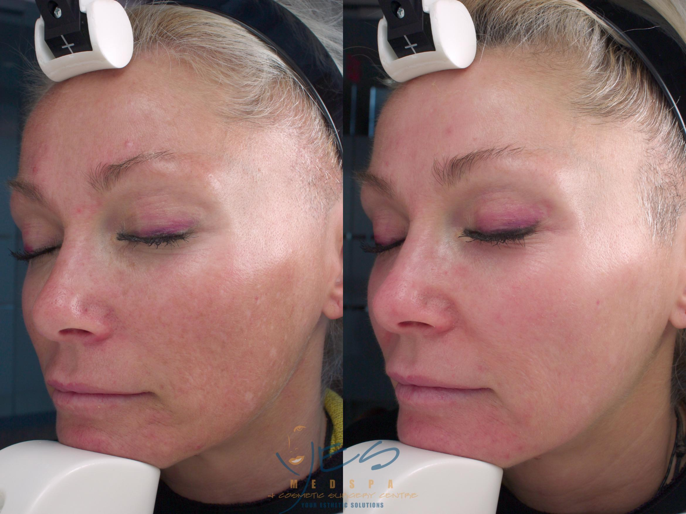 Skin Care Programs Case 131 Before & After View #1 | Vancouver, BC | YES Medspa & Cosmetic Surgery Centre