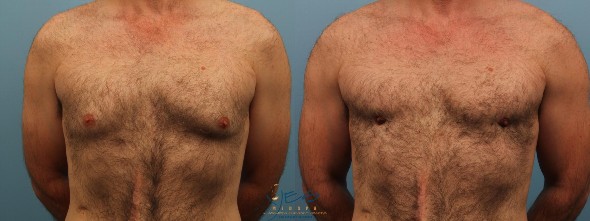 SmartLipo™ Case 172 Before & After View #1 | Langley, BC | YES Medspa & Cosmetic Surgery Centre