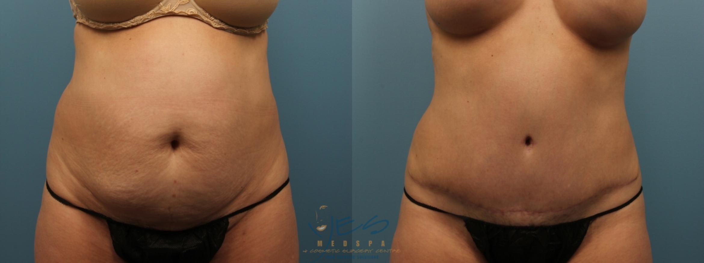 Tummy Tuck Case 151 Before & After Front | Langley, BC | YES Medspa & Cosmetic Surgery Centre