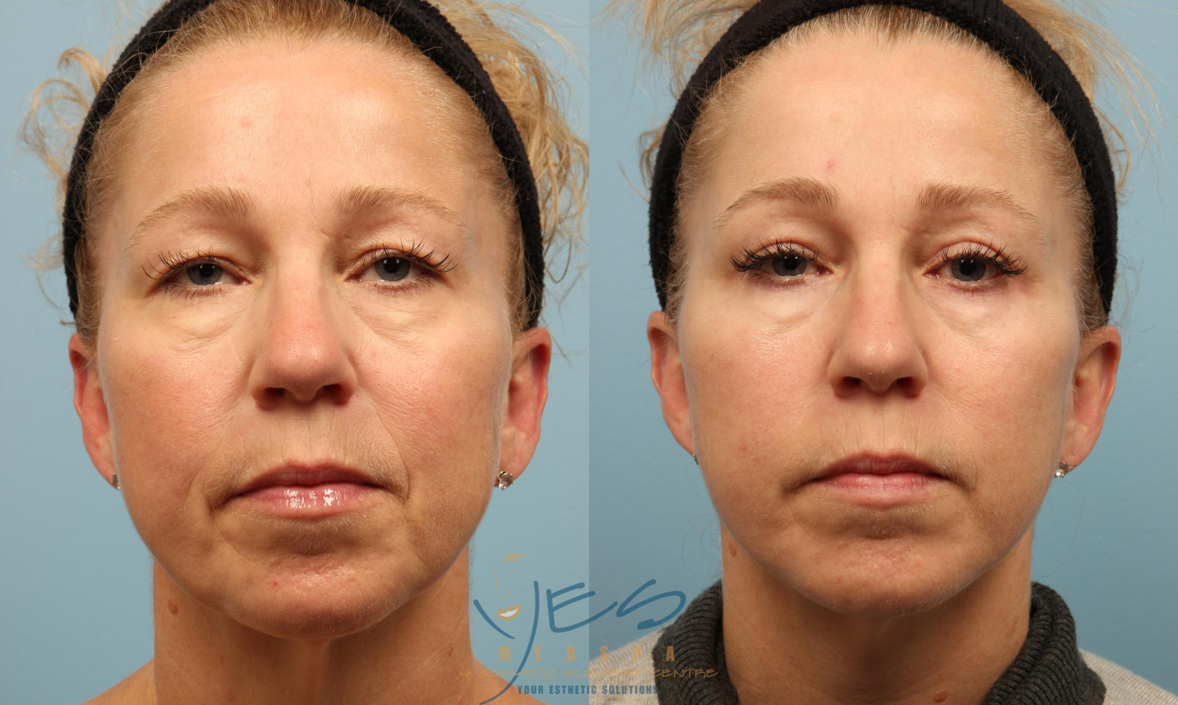 Upper Eyelid Blepharoplasty Case 275 Before & After Front | Vancouver, BC | YES Medspa & Cosmetic Surgery Centre