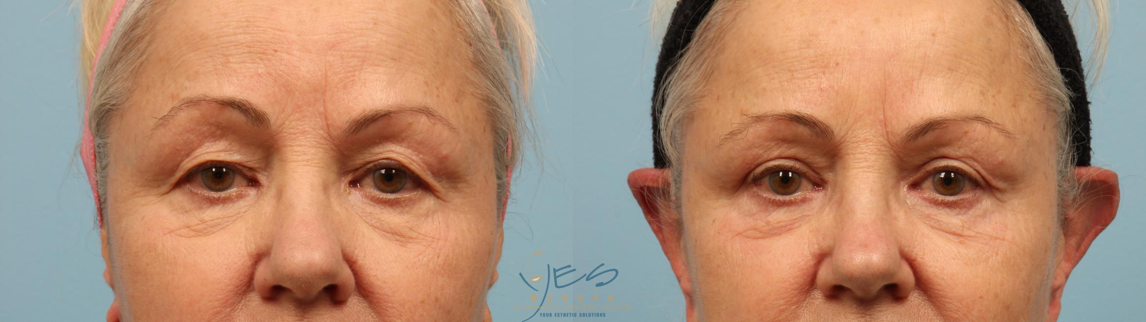 Upper Eyelid Blepharoplasty Case 294 Before & After Front | Vancouver, BC | YES Medspa & Cosmetic Surgery Centre