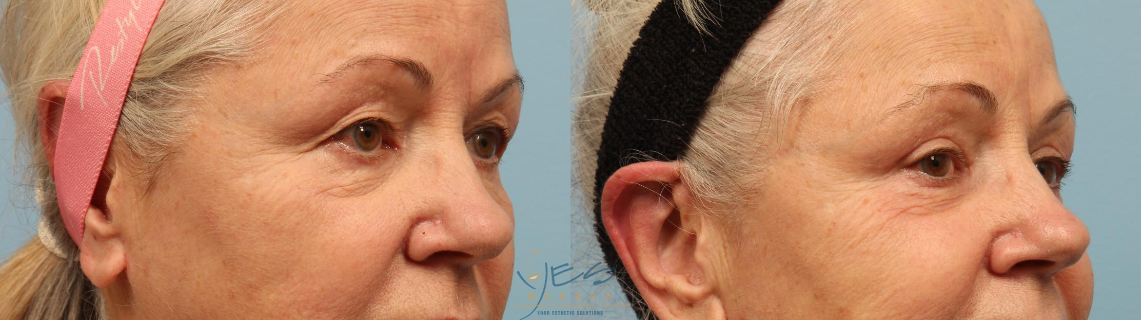Upper Eyelid Blepharoplasty Case 294 Before & After Right Oblique | Vancouver, BC | YES Medspa & Cosmetic Surgery Centre